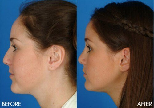 How to choose a revision rhinoplasty surgeon
