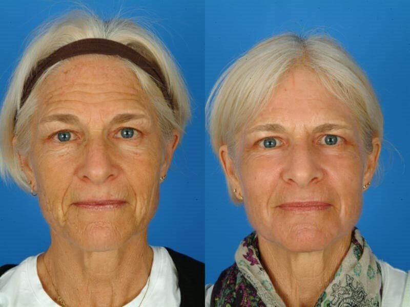 CO2 Laser Resurfacing Patient of Dr. Russell Kridel