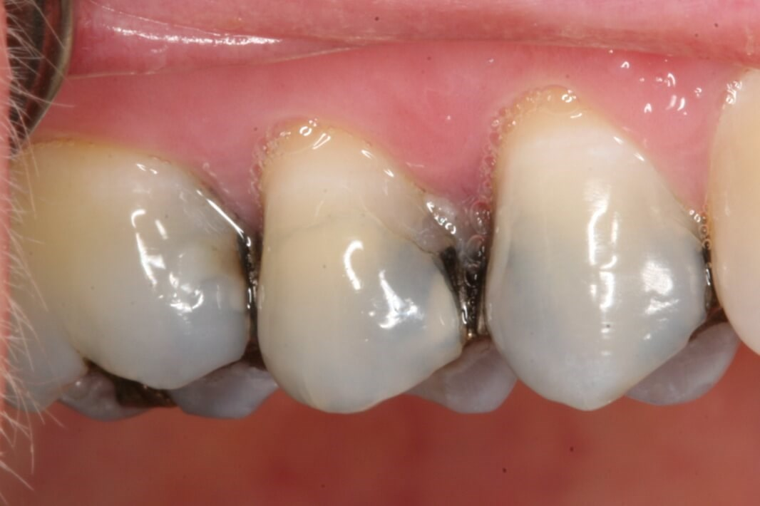 Replacing Old Amalgam Fillings Before