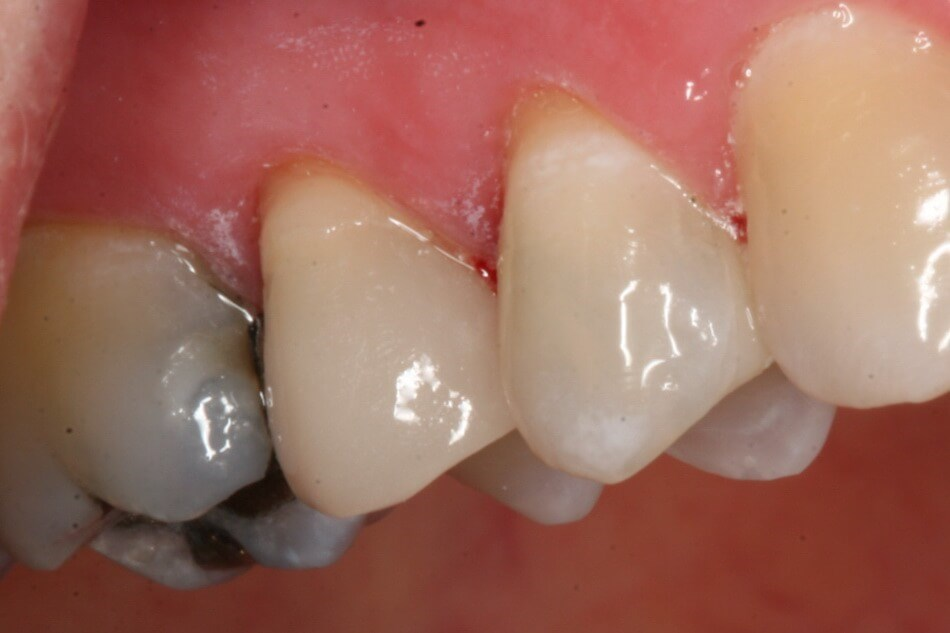 Replacing Old Amalgam Fillings After