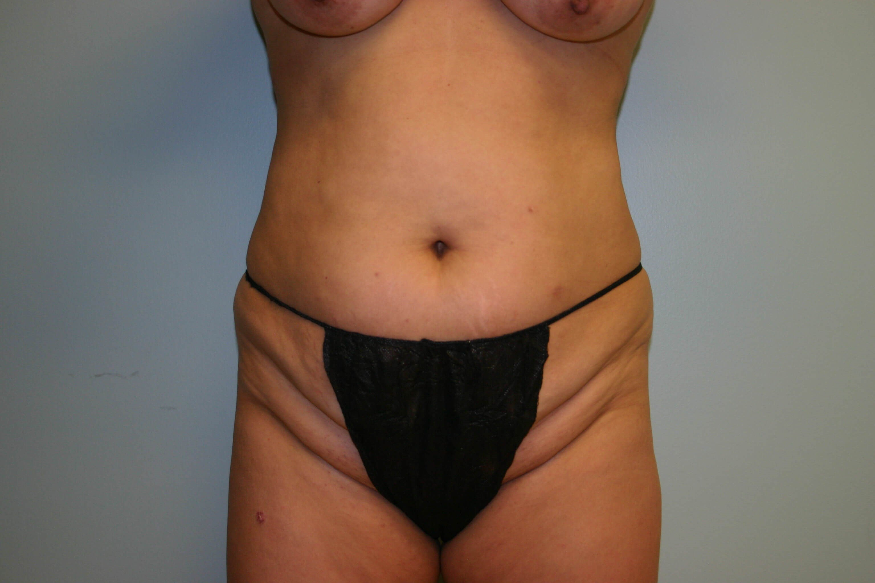 Pre-op Tummy Tuck Front View Before