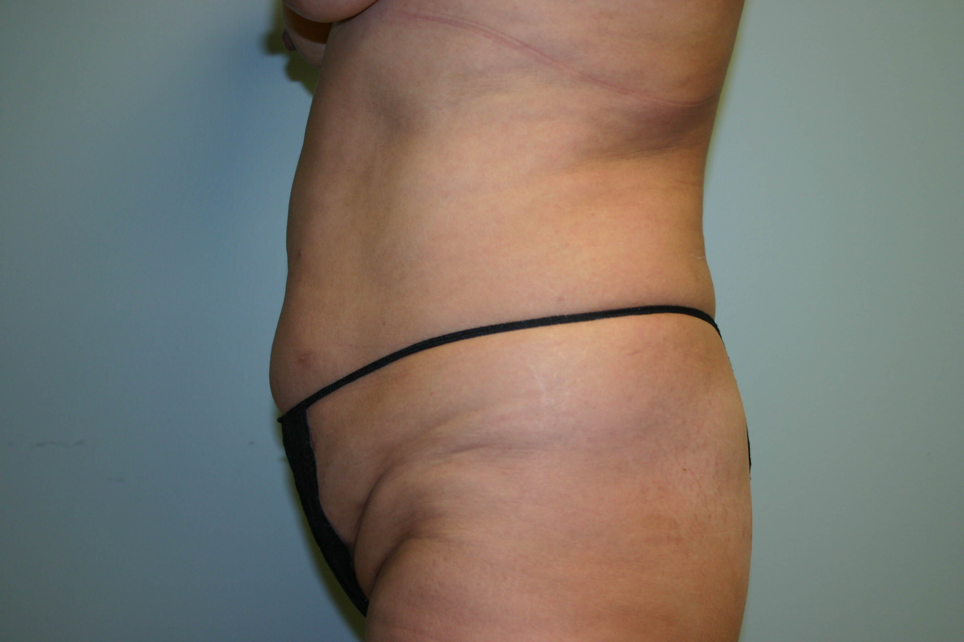 6 Months Post-Op Tummy Tuck Before