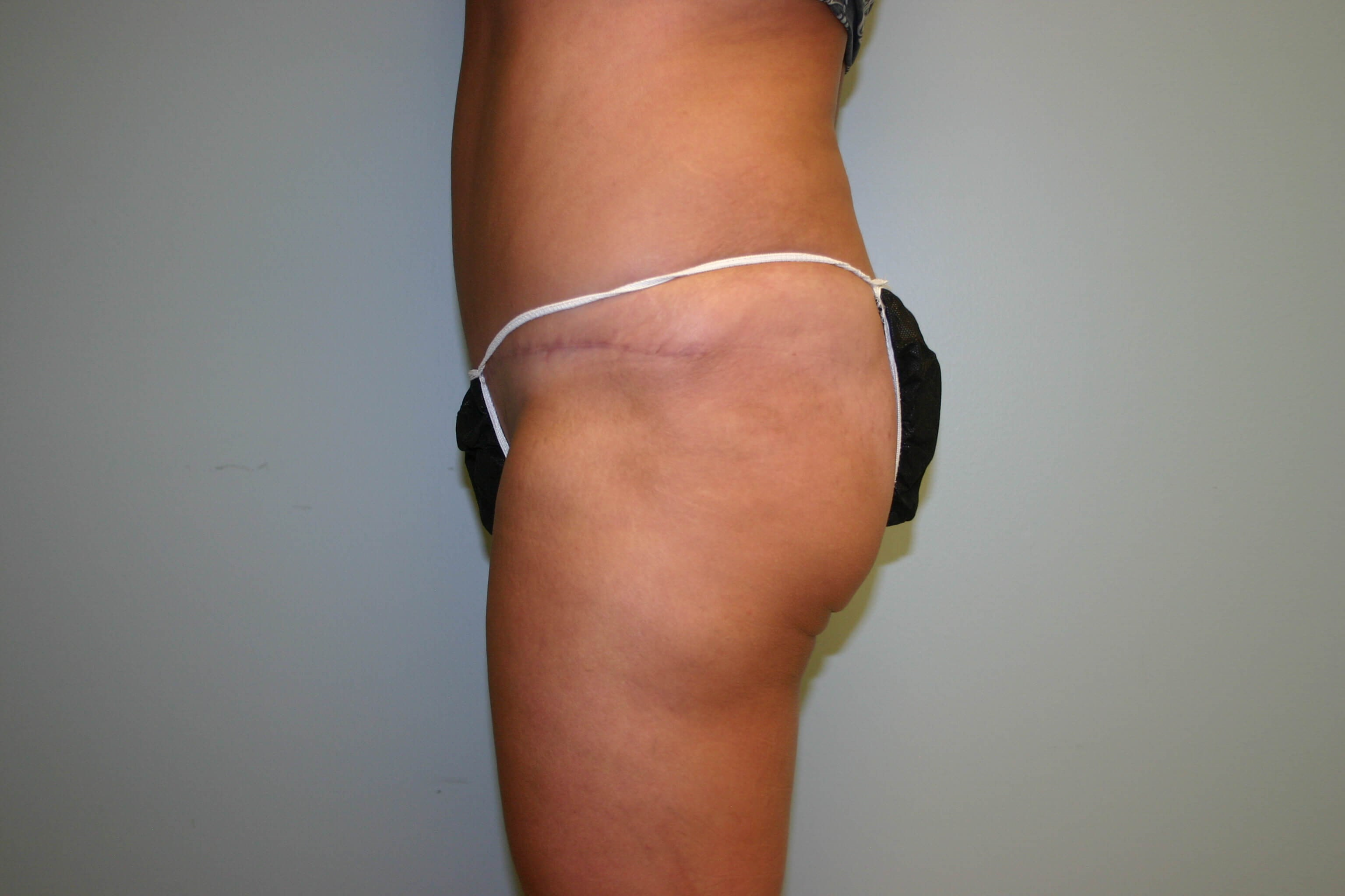6 Months Post-Op Tummy Tuck After