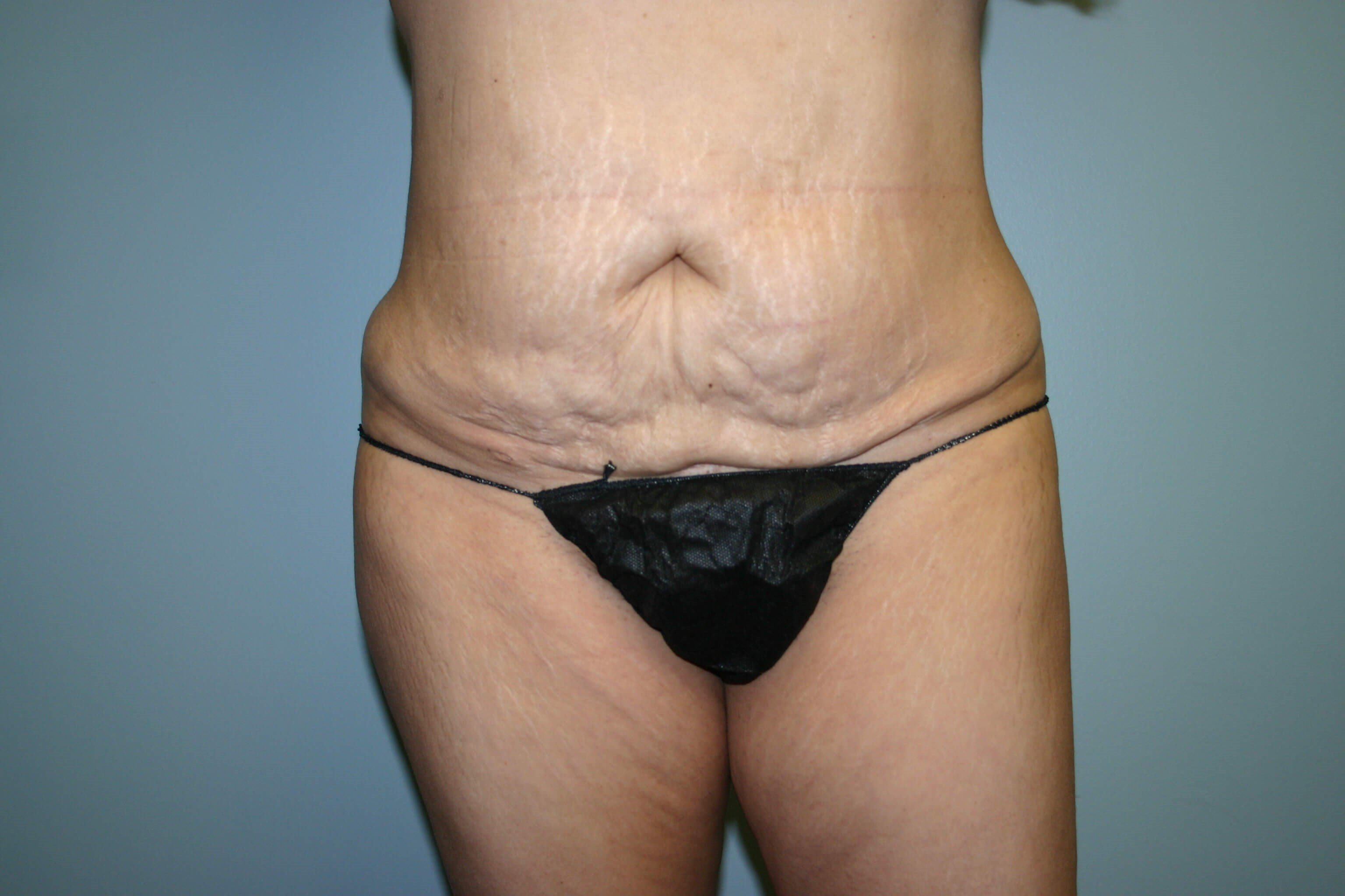 Pre-operative Tummy Tuck Before