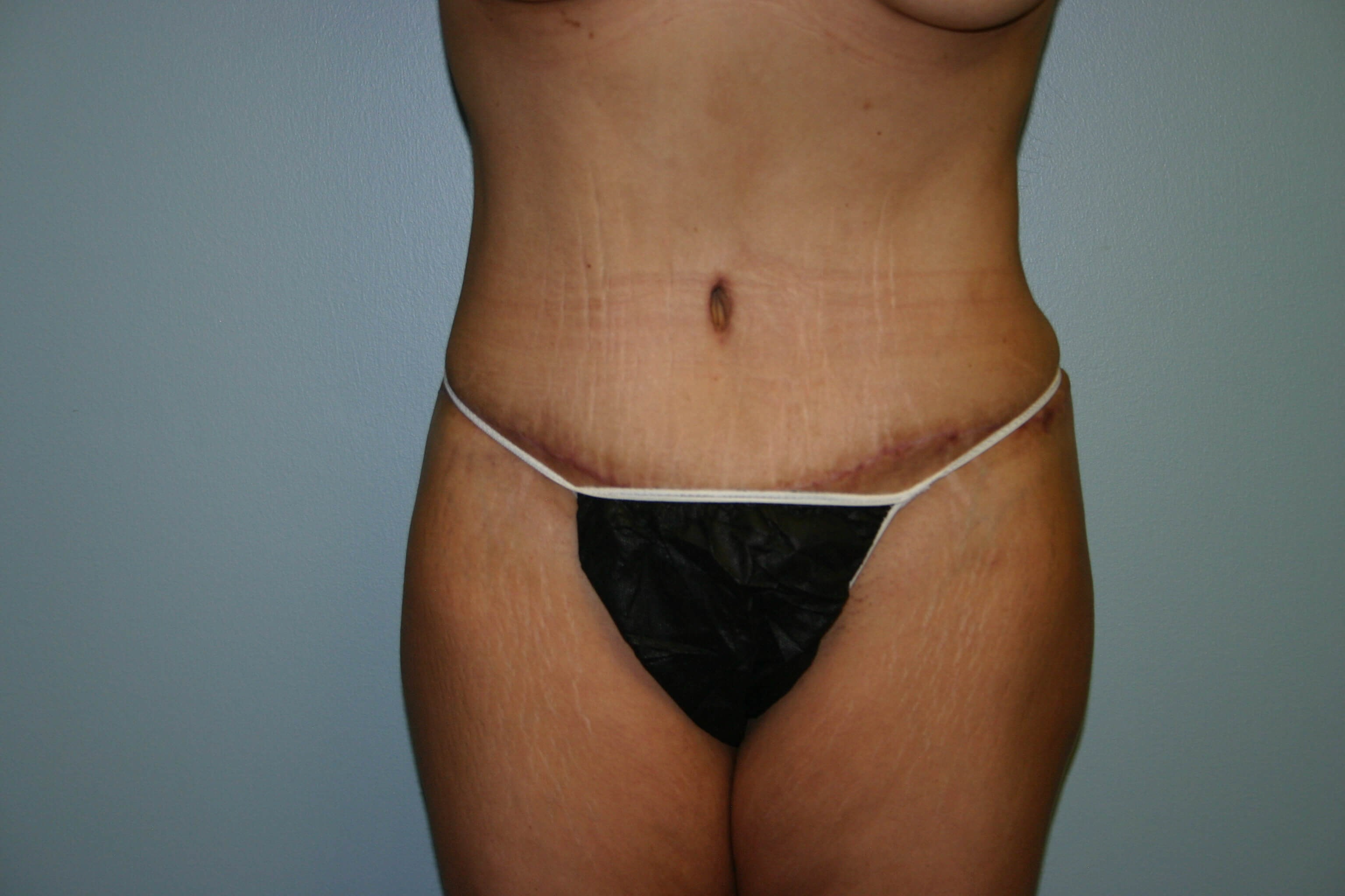 Pre-operative Tummy Tuck After