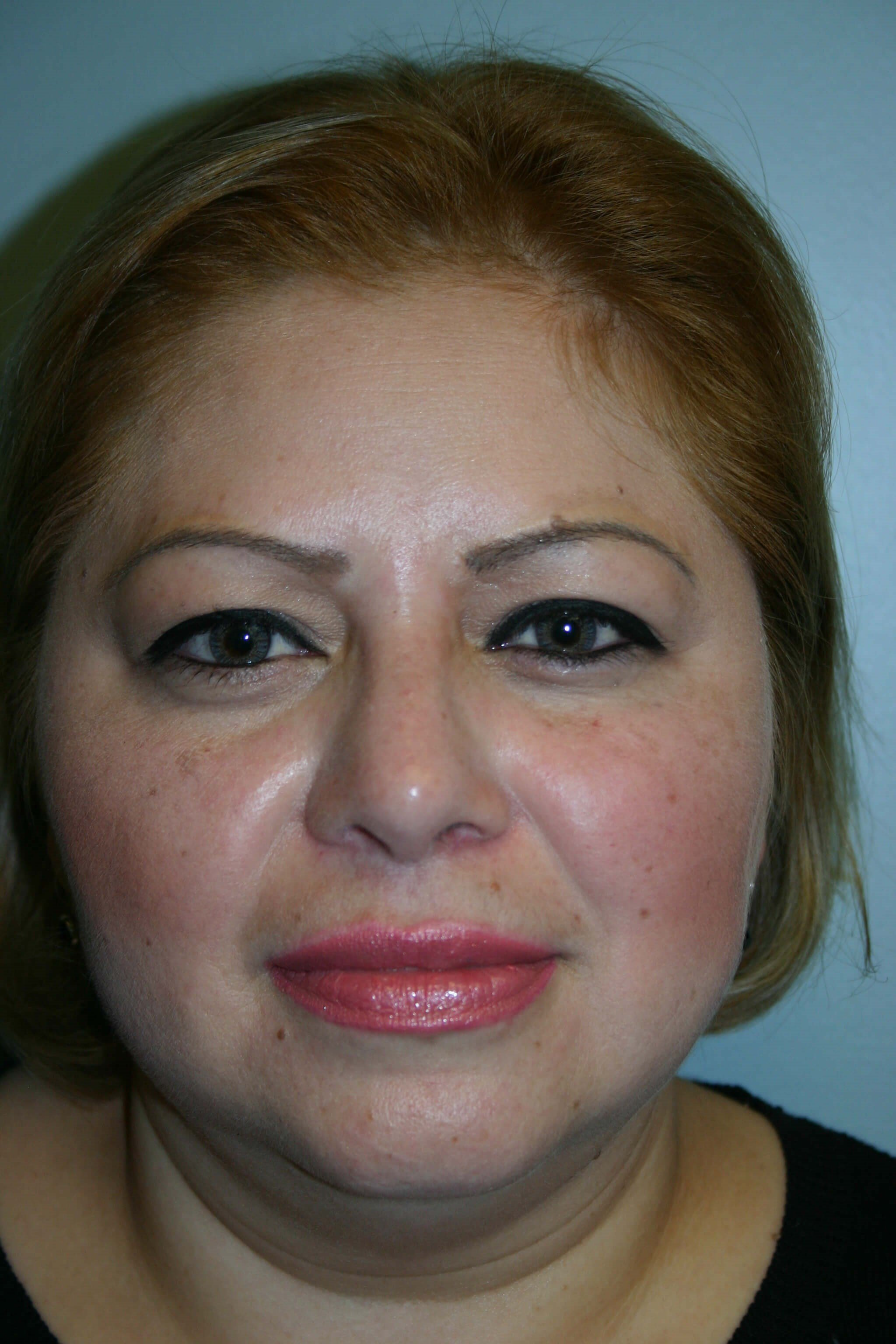 Pre-op Rhinoplasty After