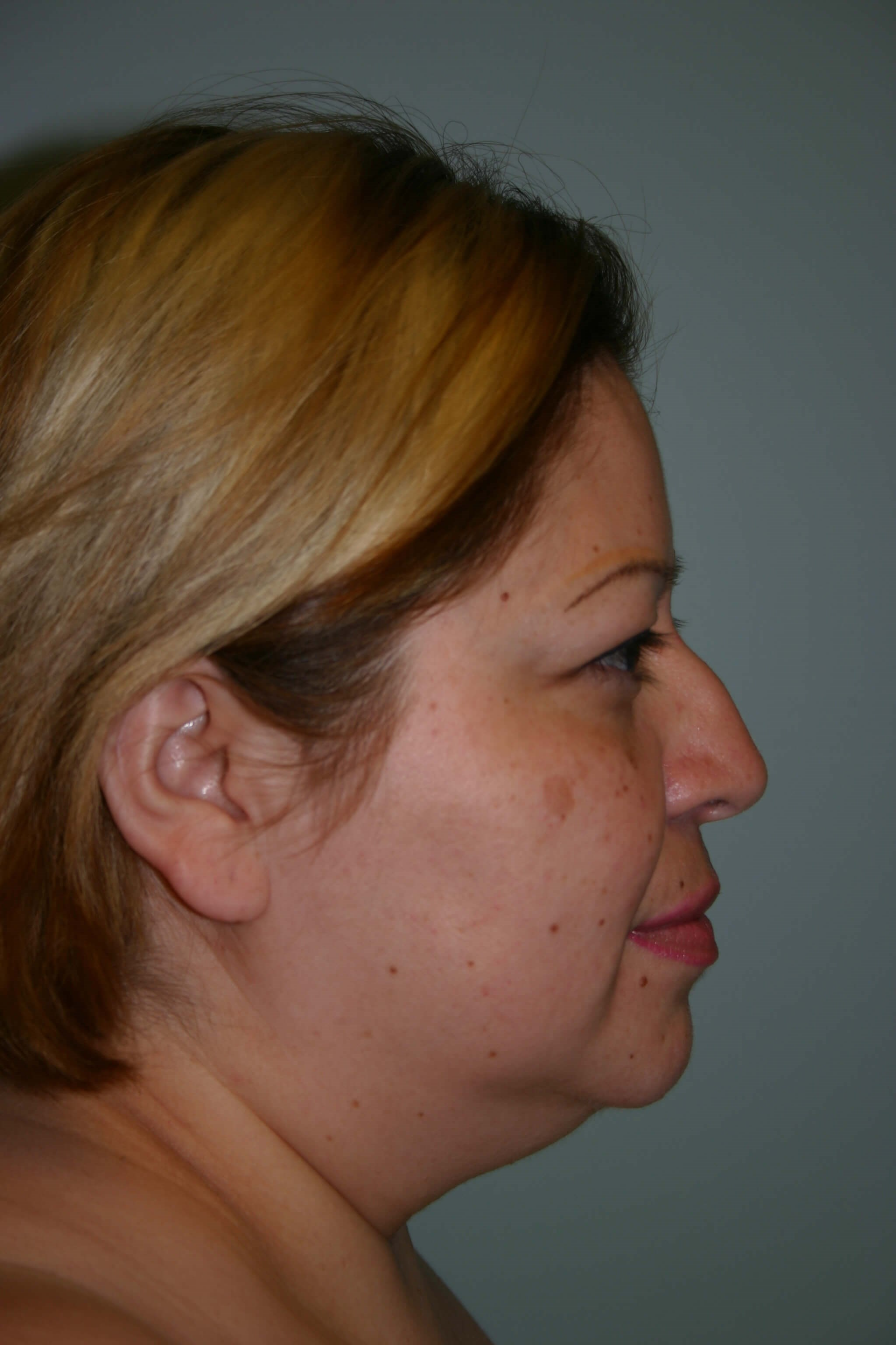 6 Months Post-op Rhinoplasty Before