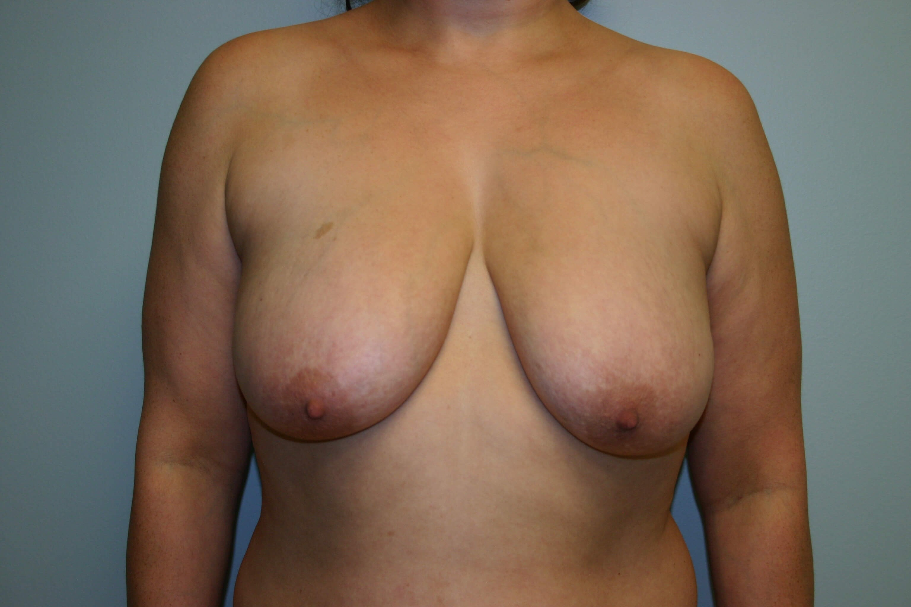 3 Months Pre-op Breast Lift Before