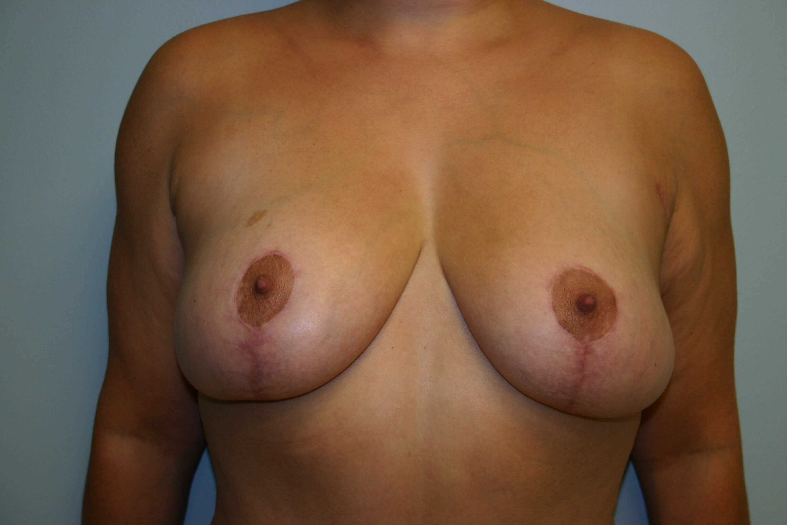3 Months Pre-op Breast Lift After