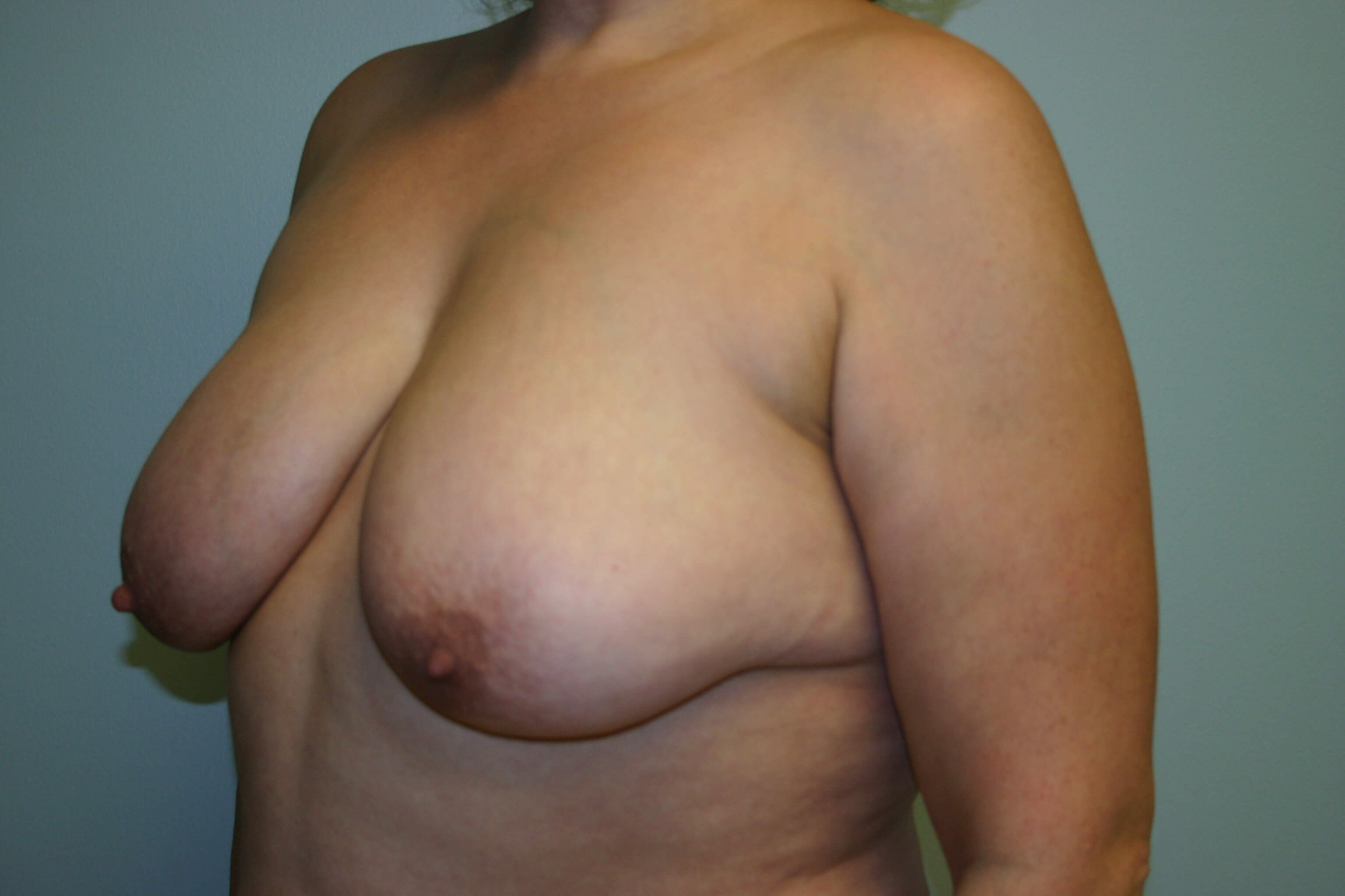 3 Months Post-op Breast Lift Before