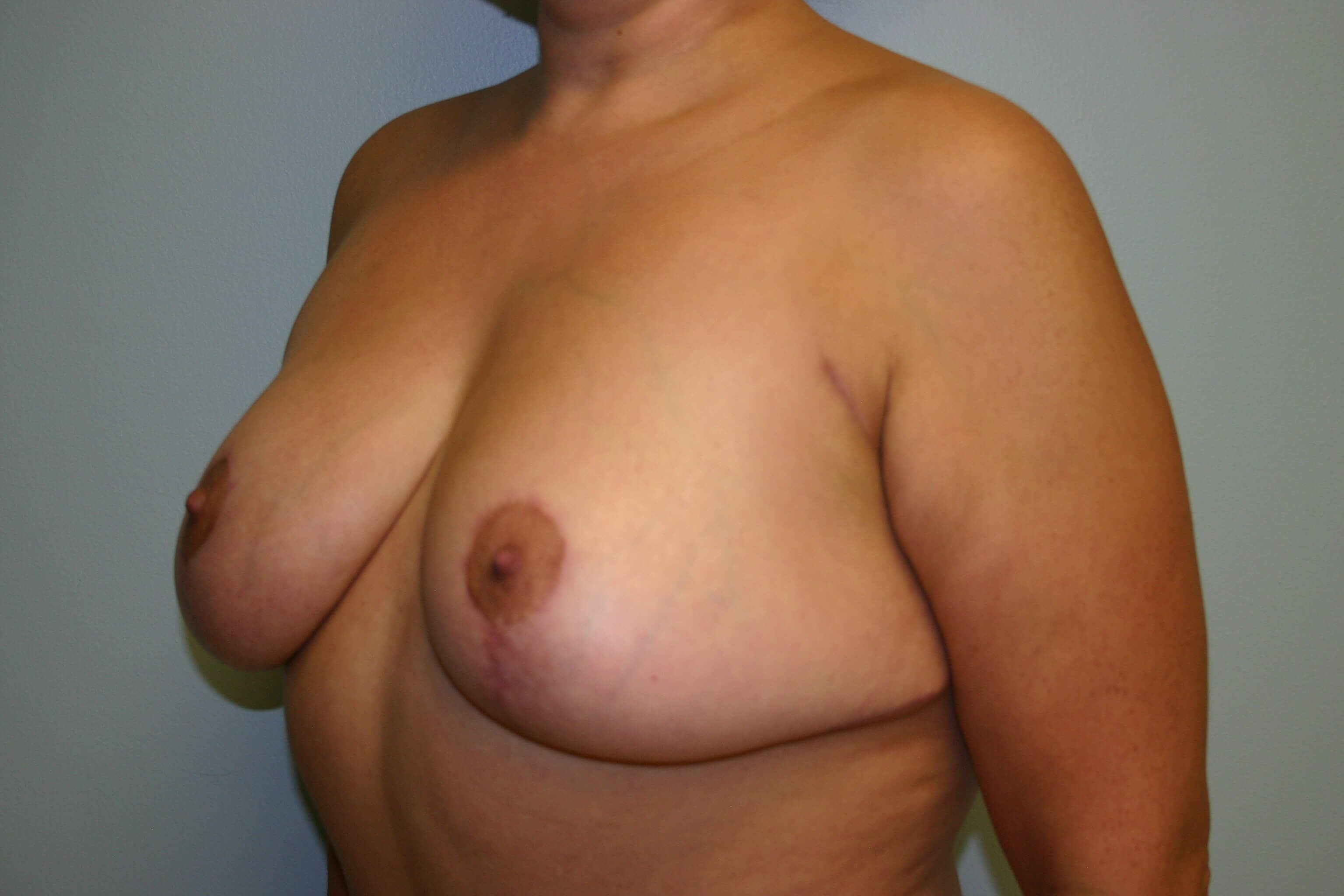 3 Months Post-op Breast Lift After