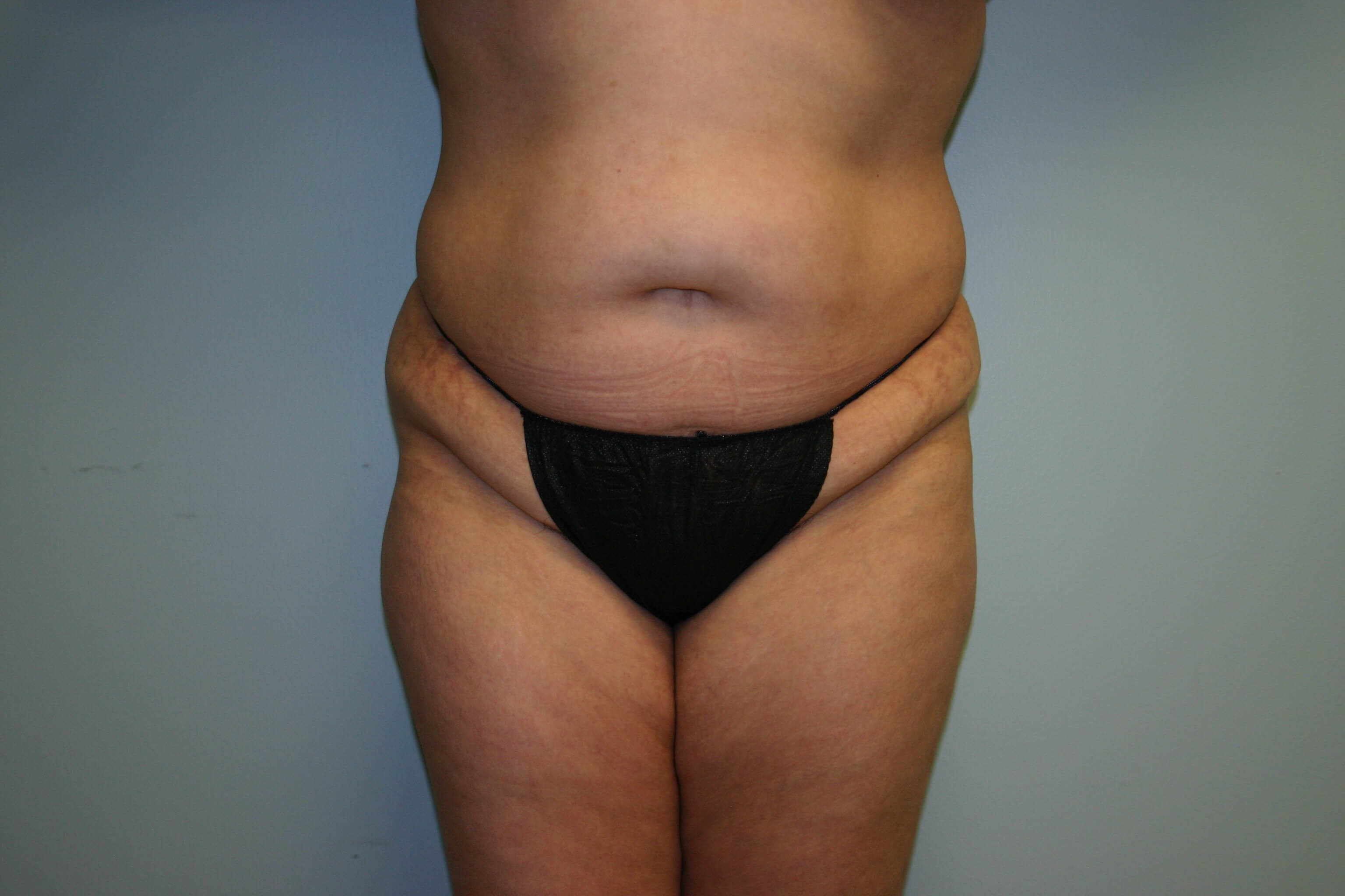 3 Month Post-op Tummy Tuck Before
