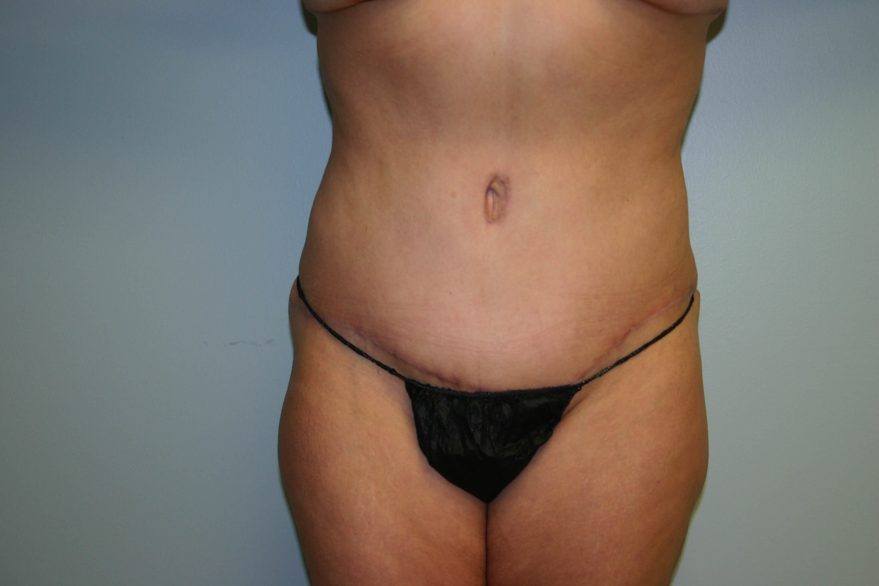 3 Month Post-op Tummy Tuck After