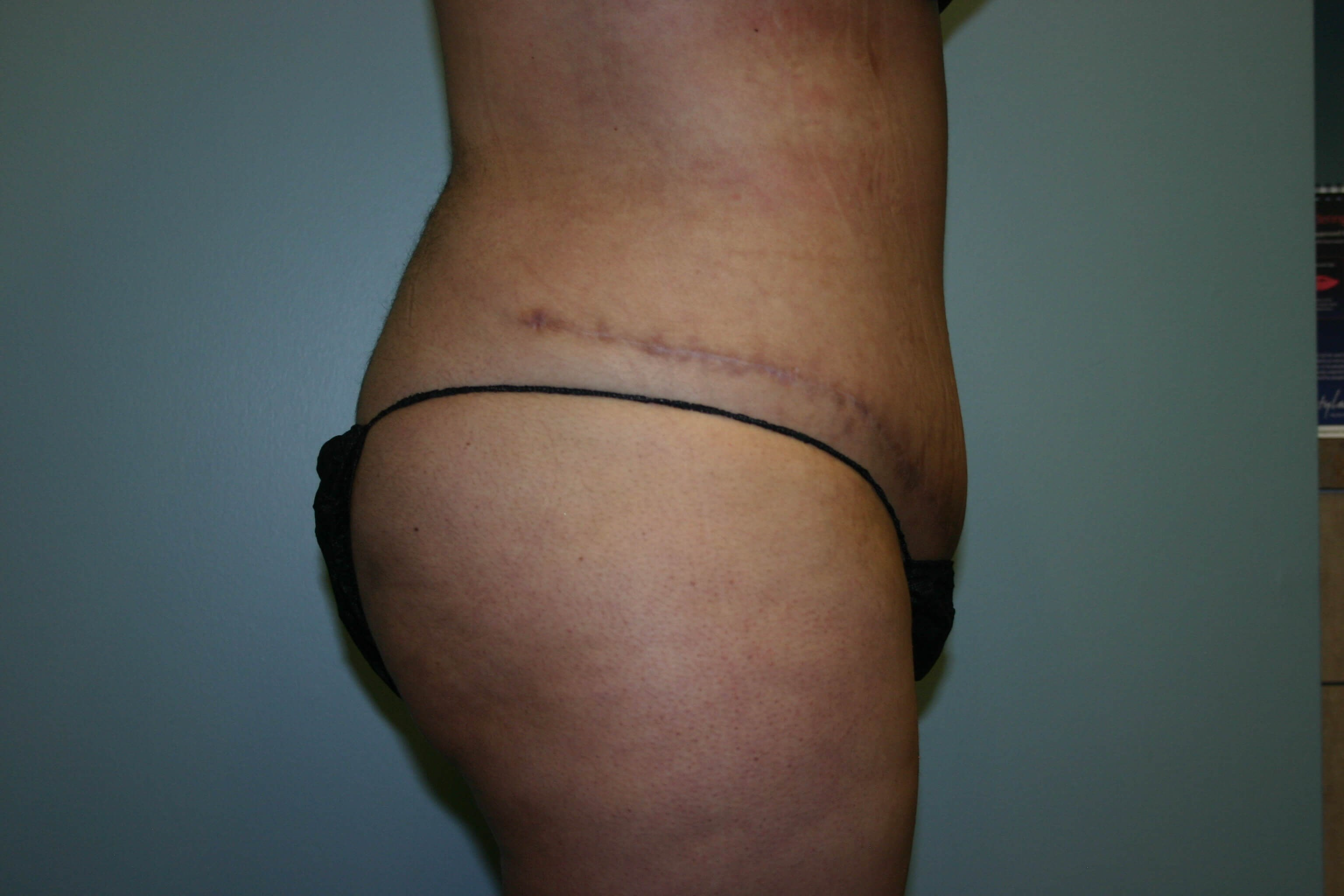 3 Months Post-op Tummy Tuck After