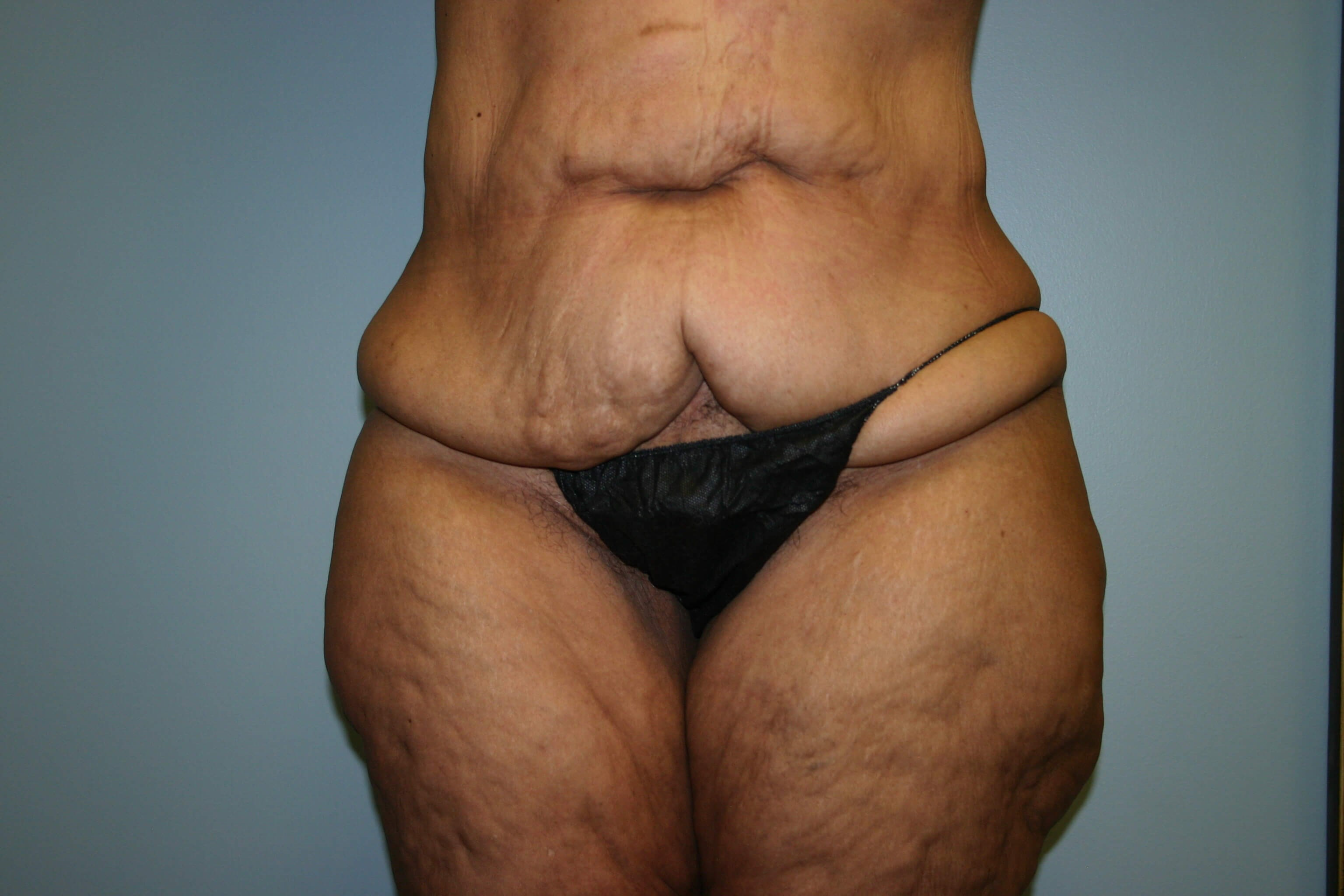 1 Year Pre-op Tummy Tuck Before