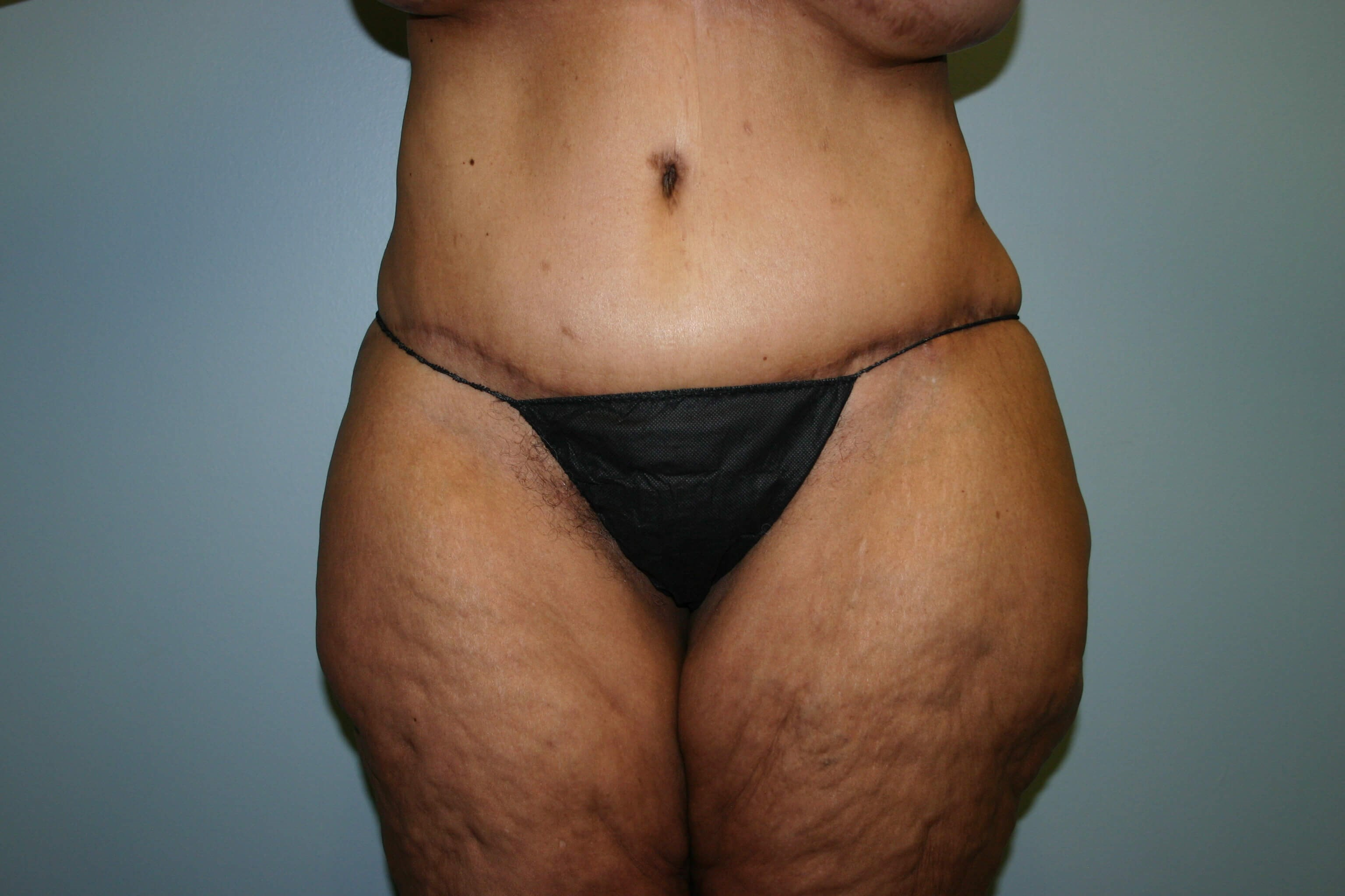 1 Year Pre-op Tummy Tuck After