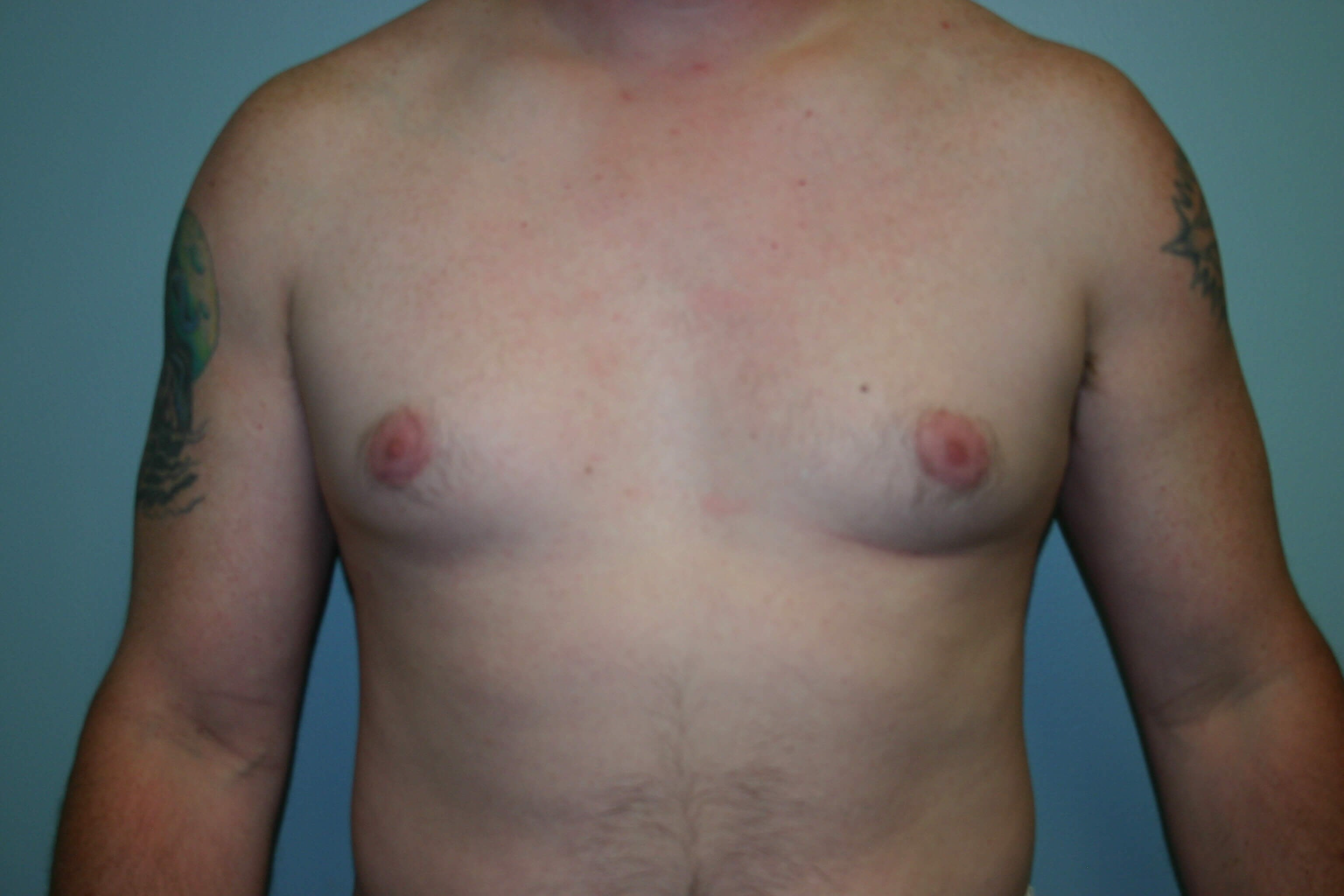 6 Months Post-op Gynecomastia Before