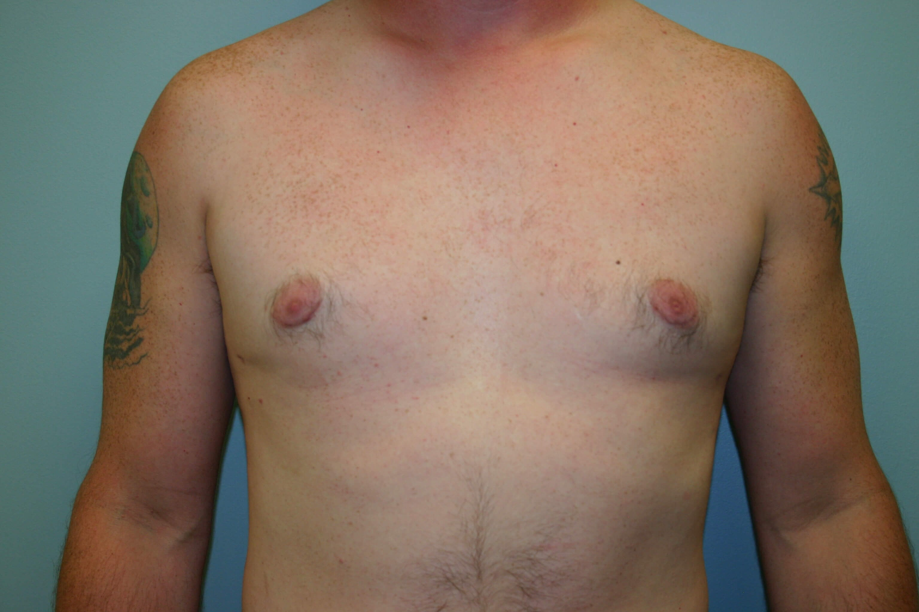 6 Months Post-op Gynecomastia After
