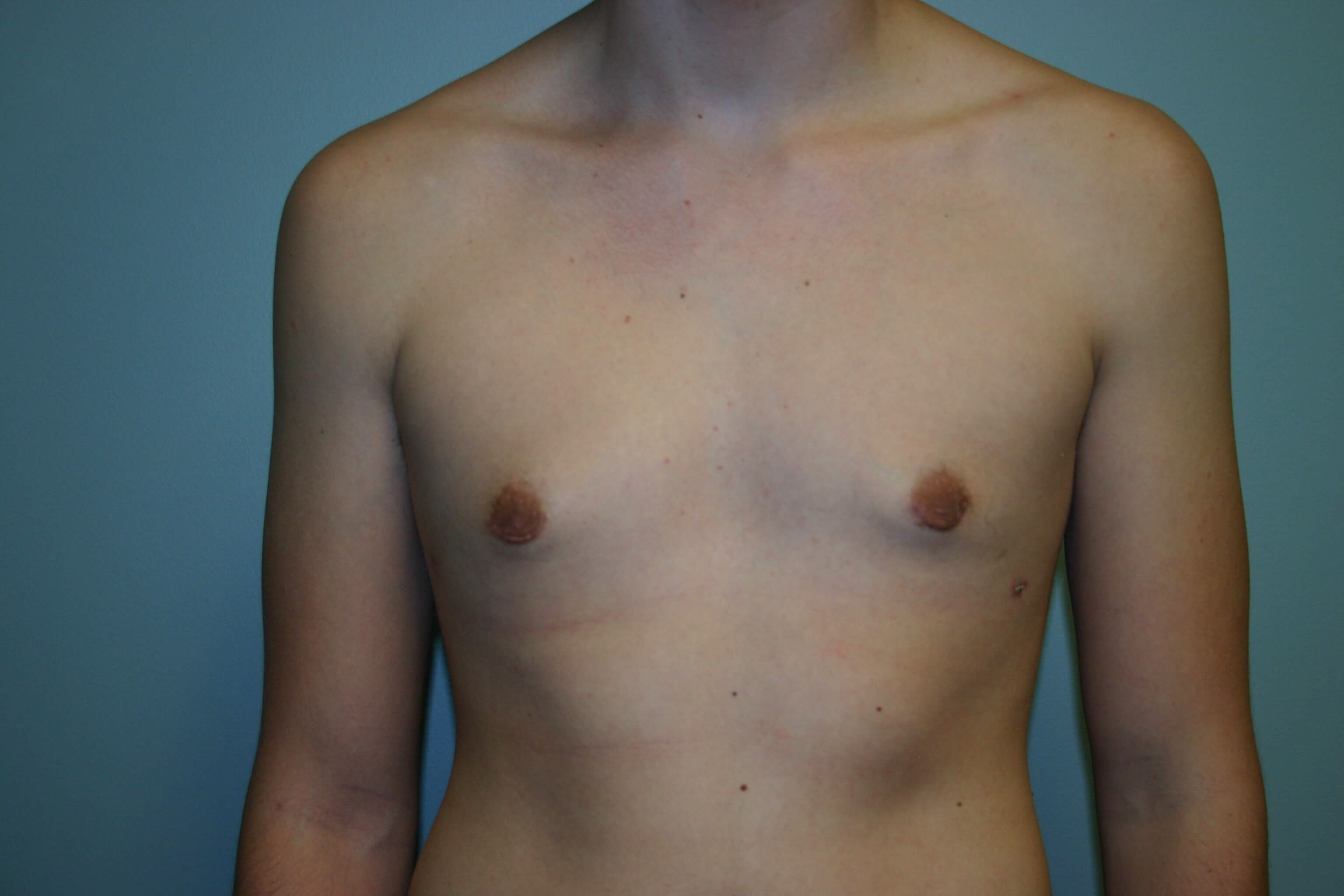 3 Months Post-op Gynecomastia After