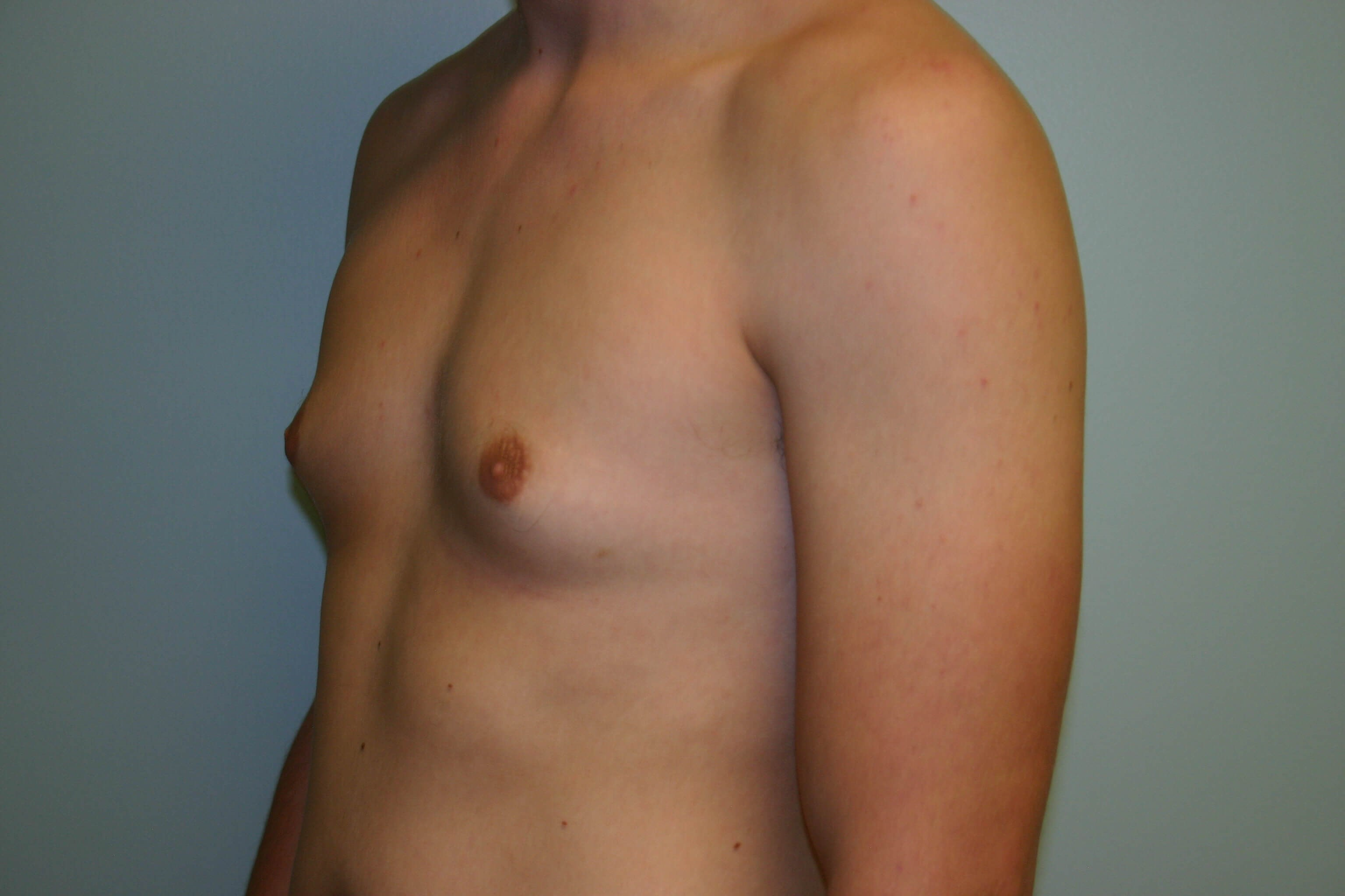 3 Months Post-Op Gynecomastia Before