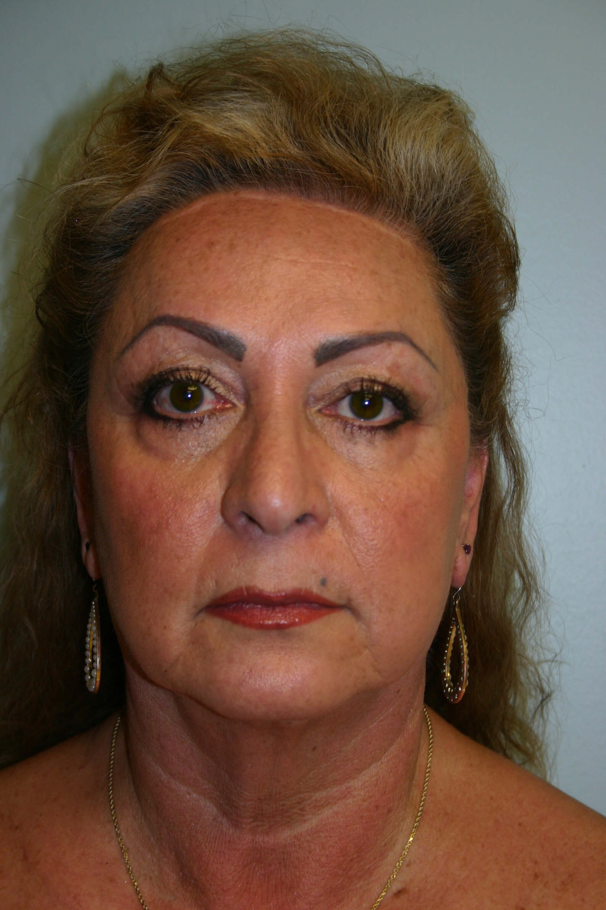 6 Months Post-op Facelift Before
