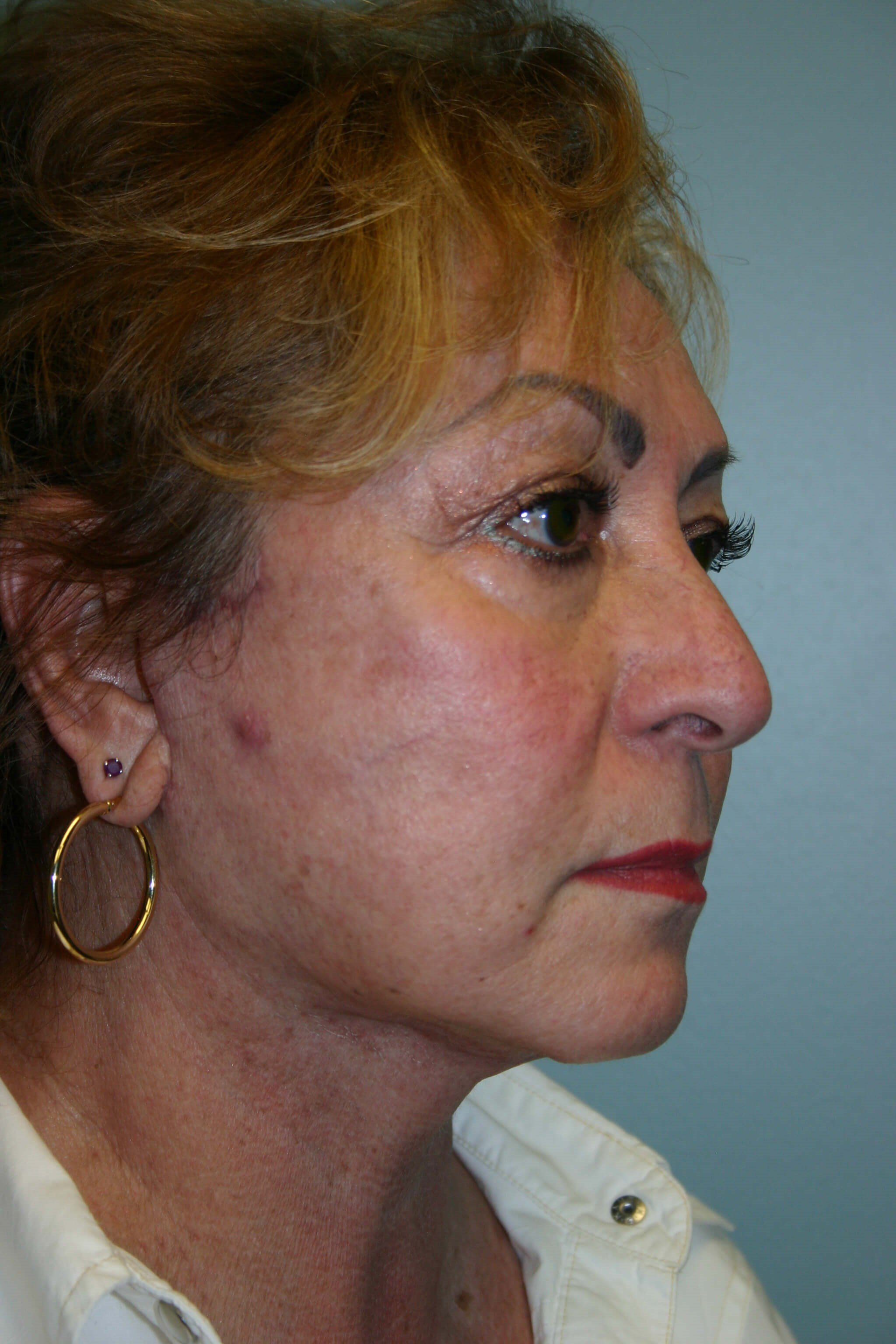 6 Months Post-op Facelift After