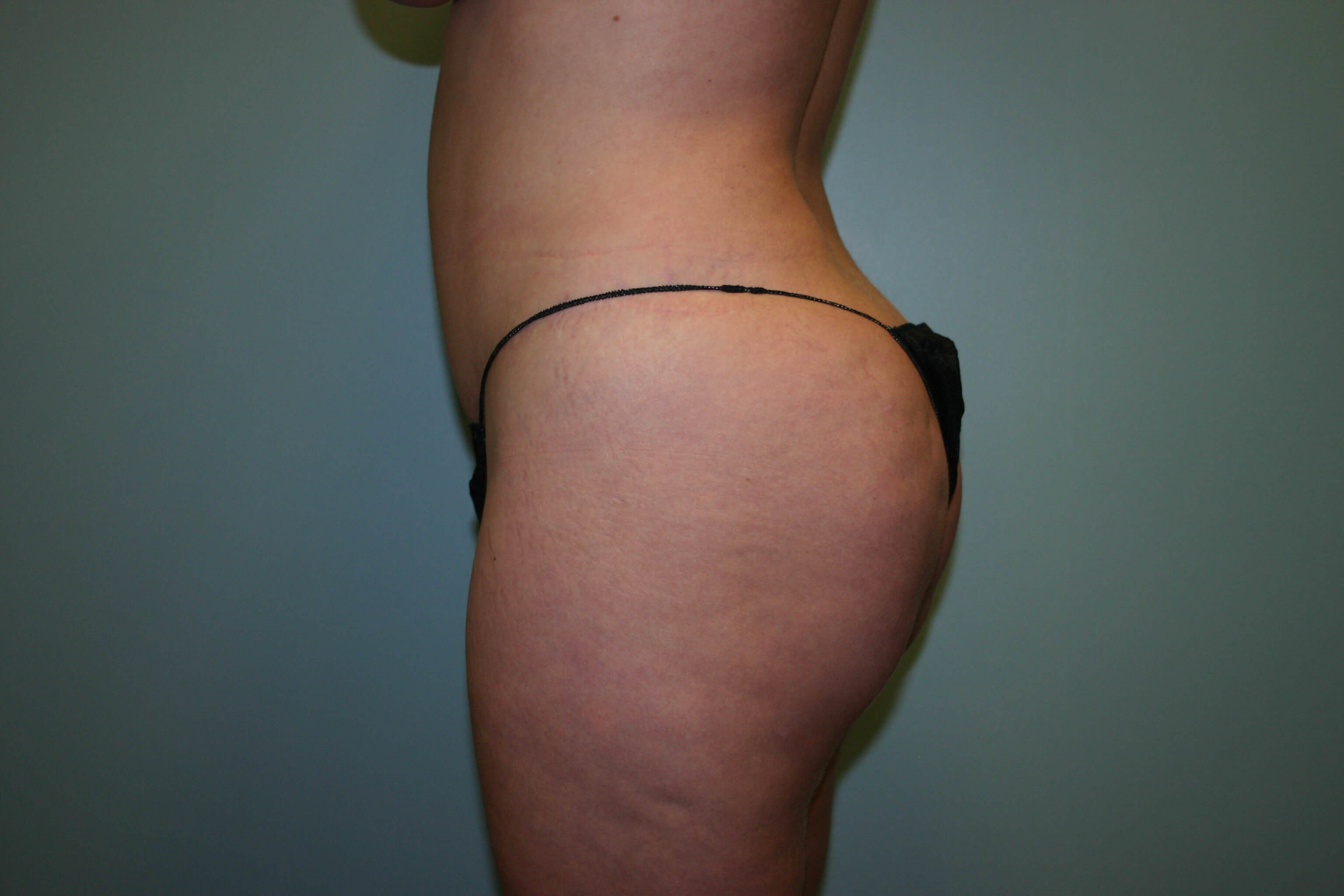 3 Months Post-op Butt Aug Before