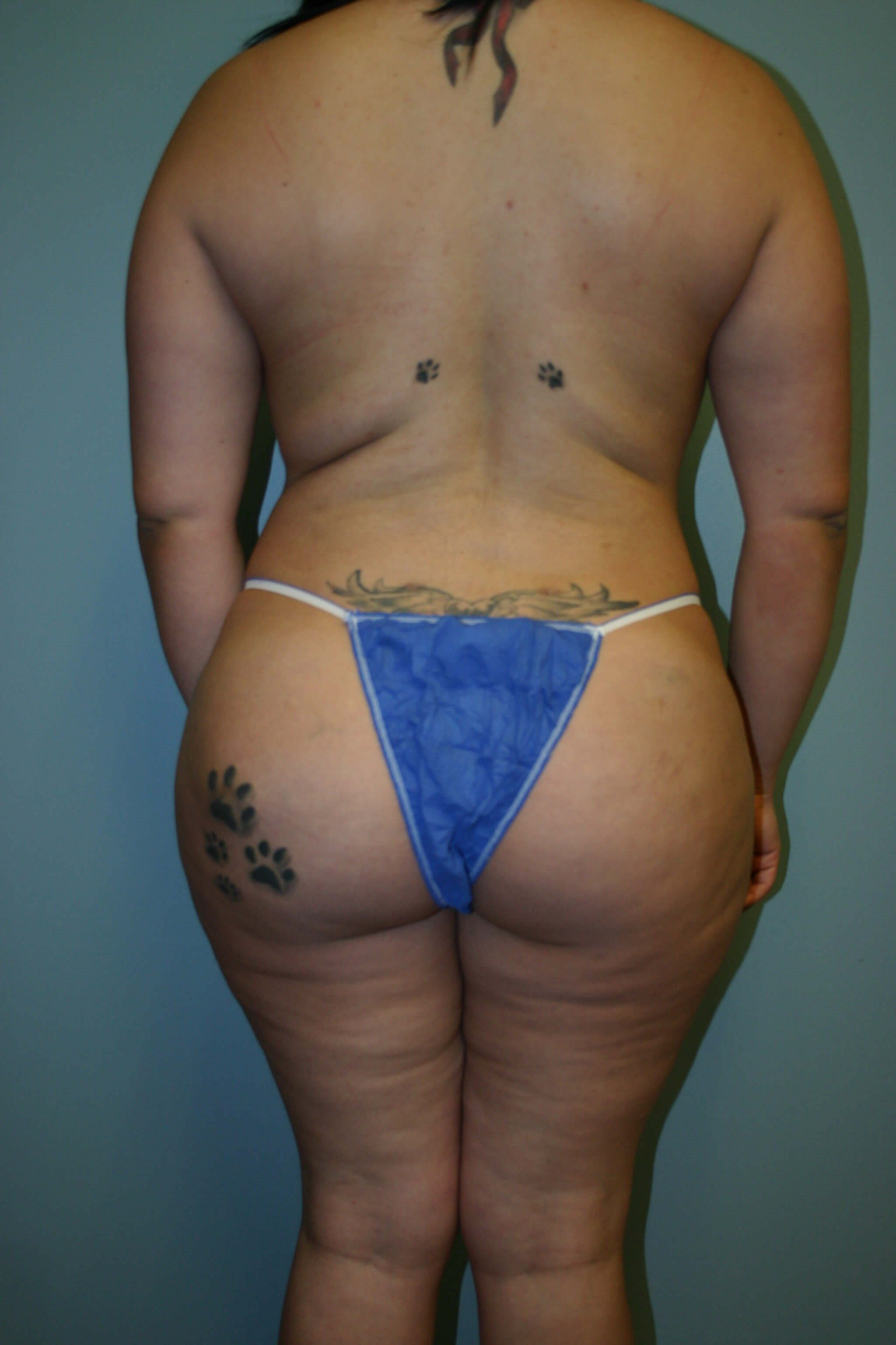 6 Months Post-op Butt Aug After
