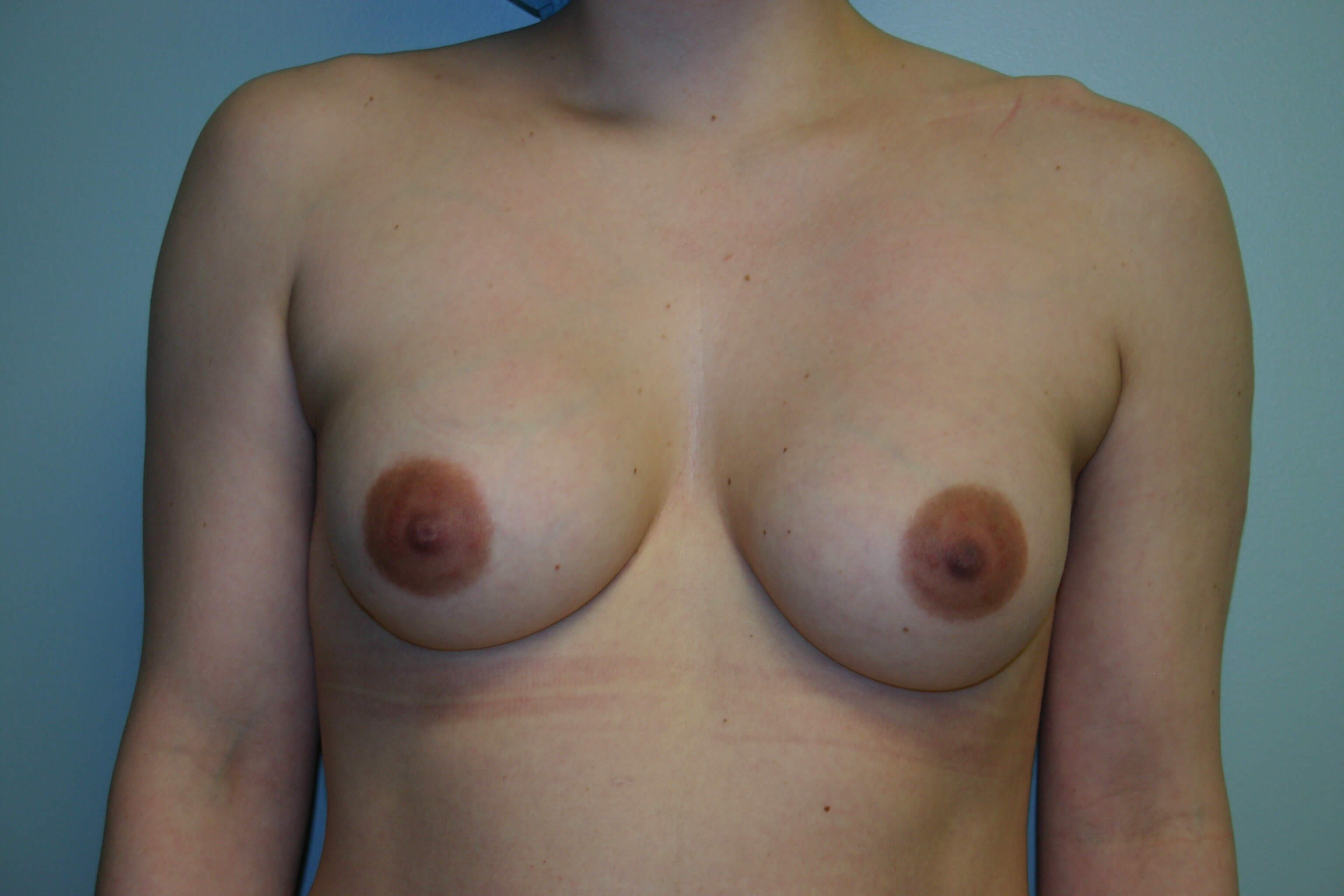3 Months Post-op Exchange Before