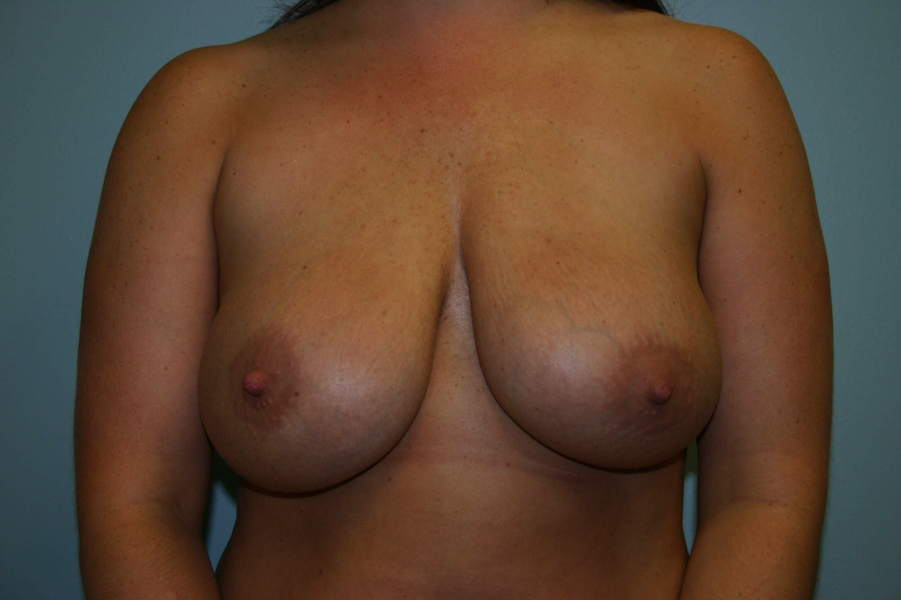 3 Months Post-op Breast Rev Before