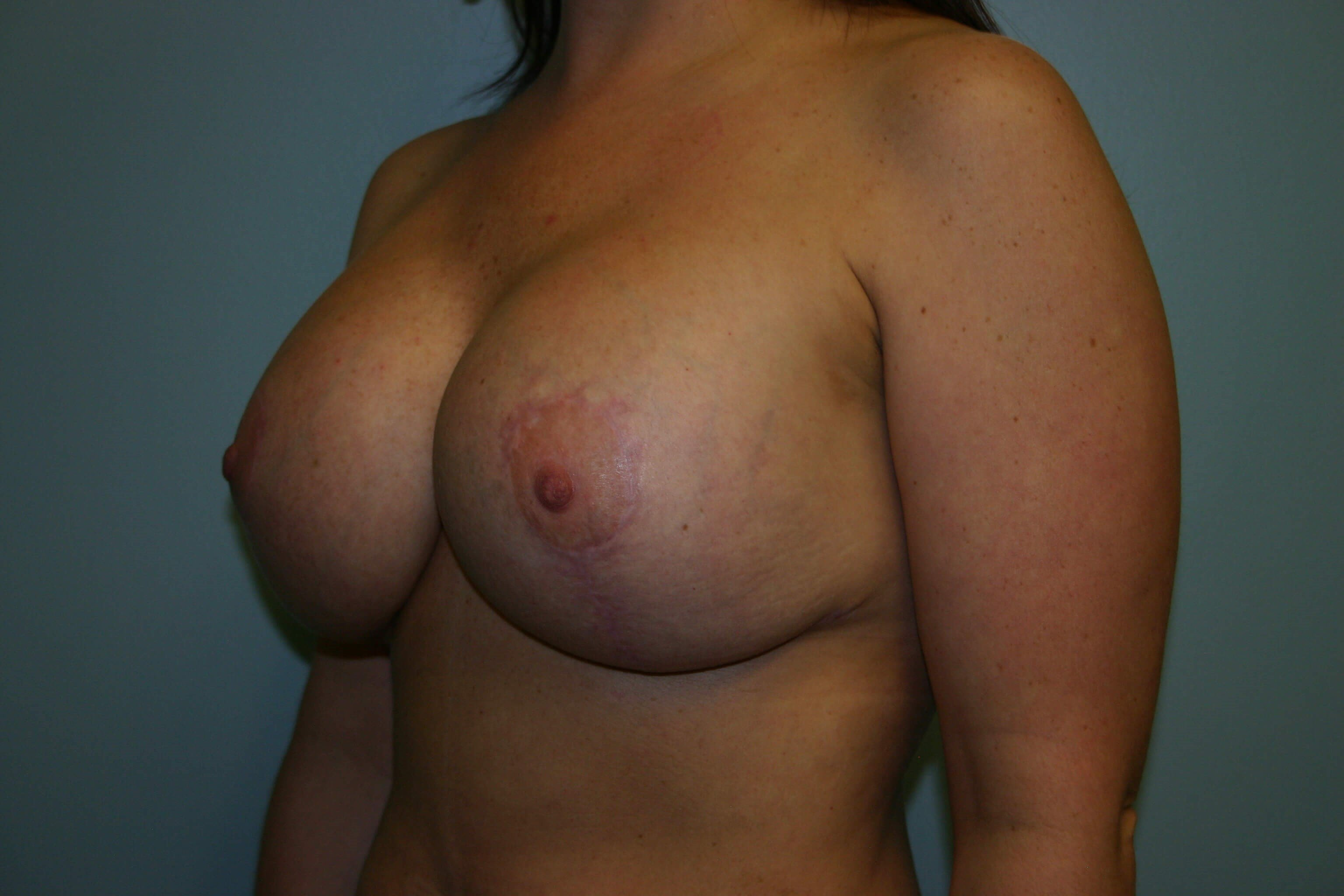 3 Months Post-op Breast Rev After
