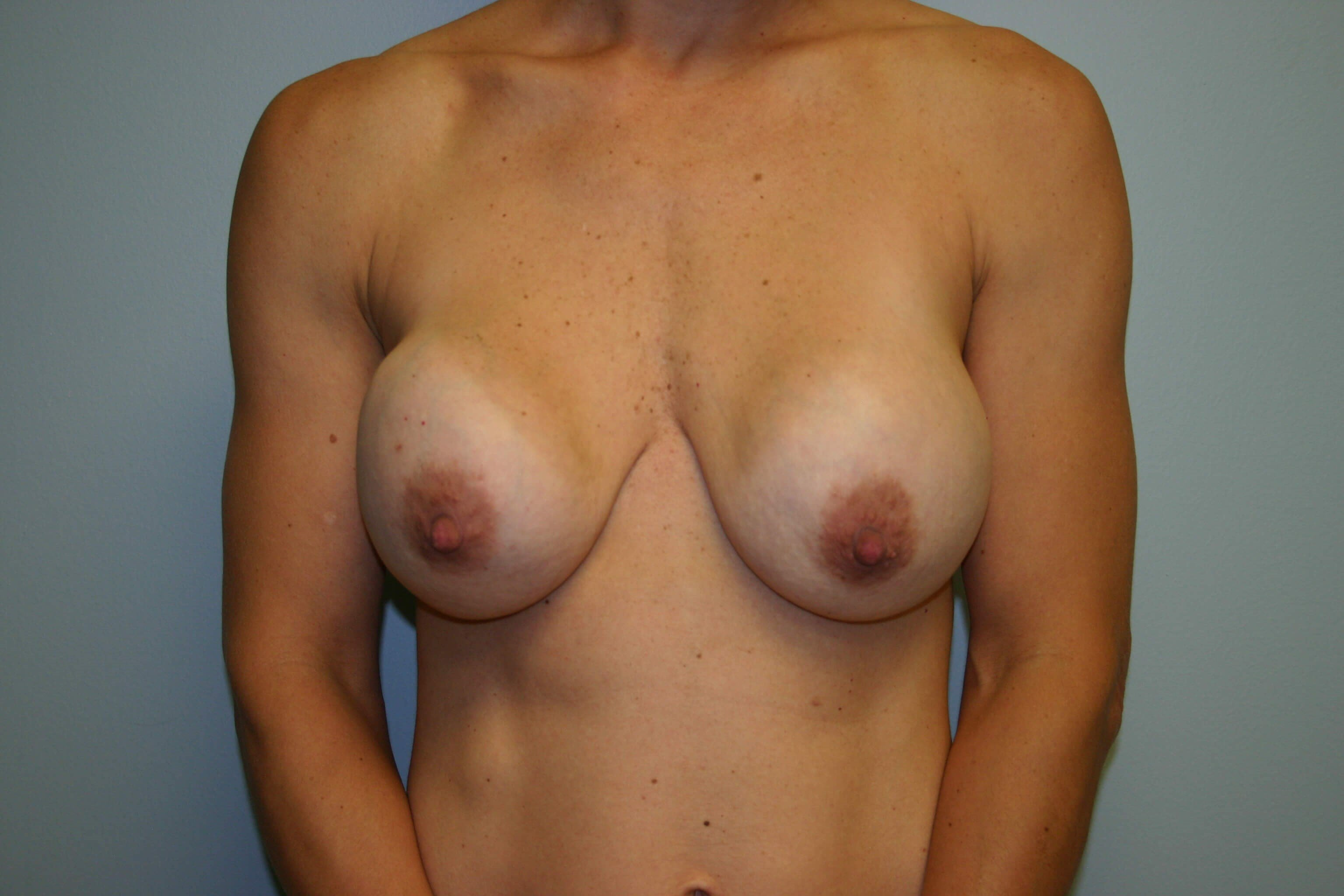 2 Years Post Op Breast Surgery Before