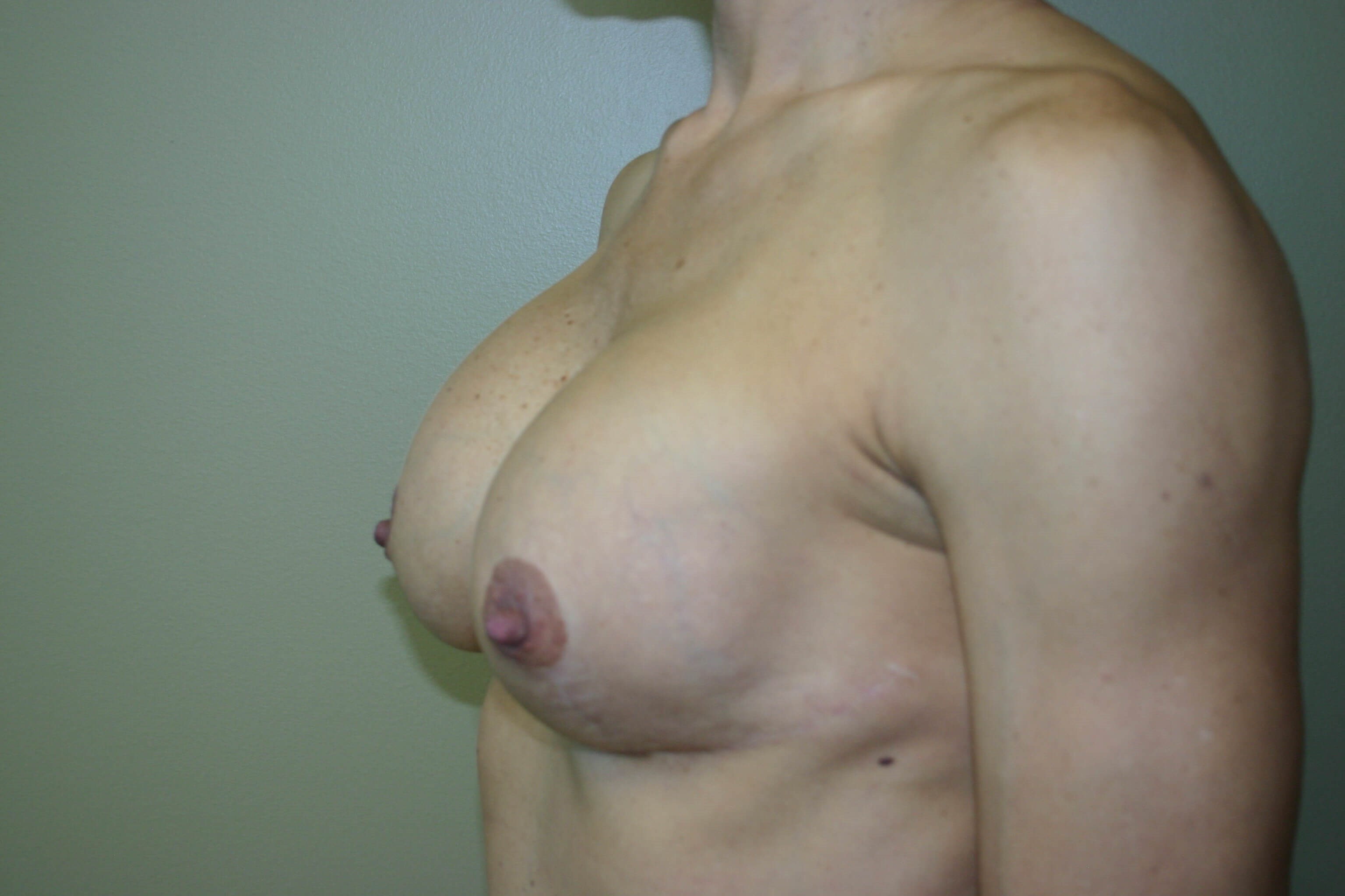 2 Years Post Op Breast Surgery After