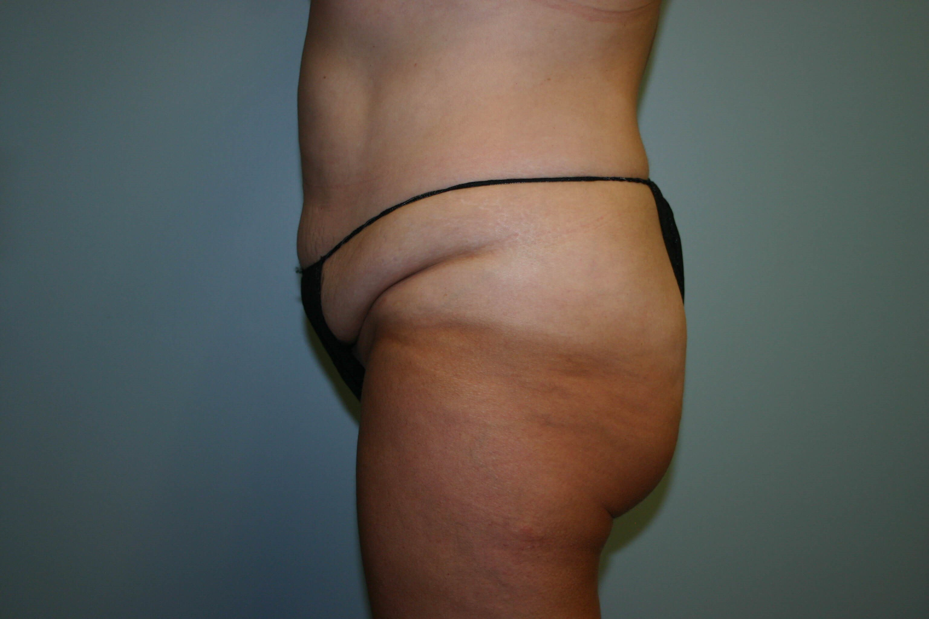 2 Years Post-op Tummy Tuck Before