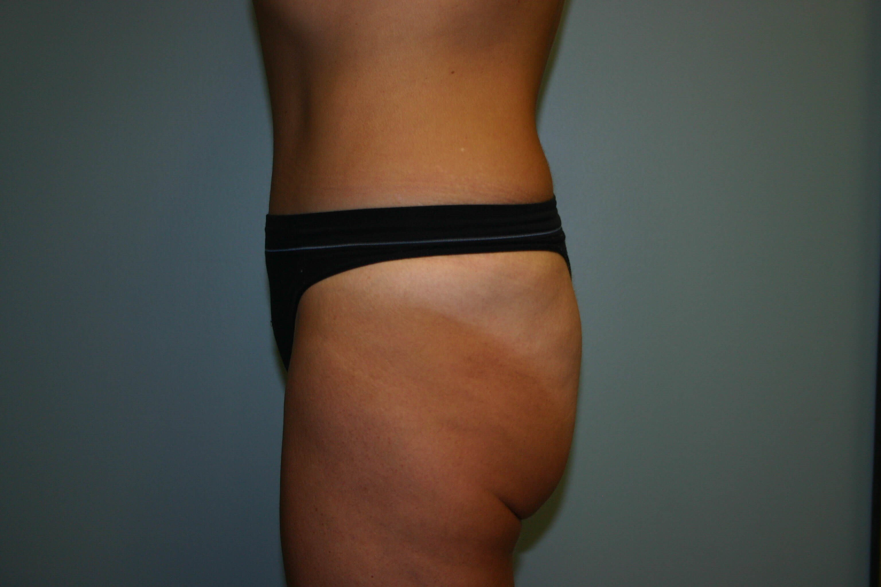 2 Years Post-op Tummy Tuck After