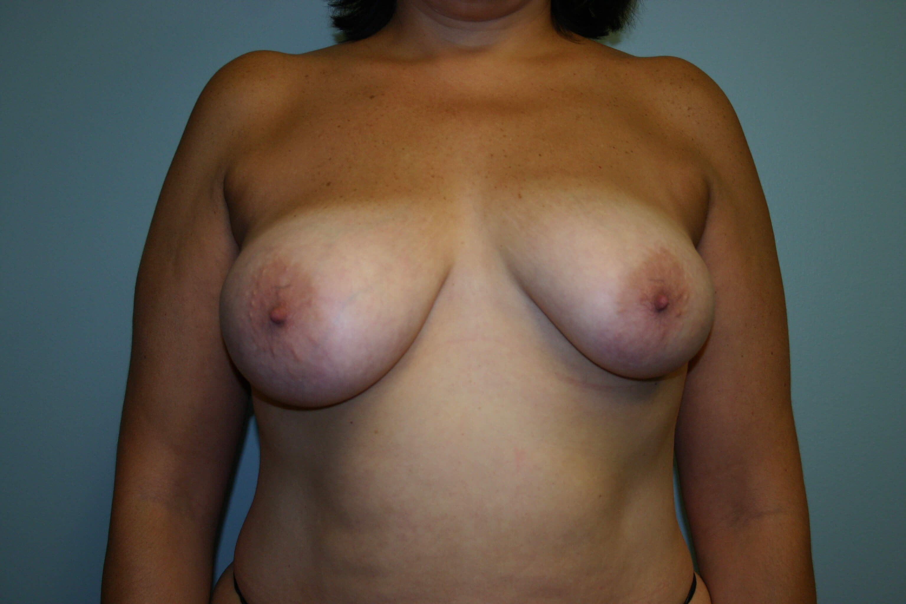 2 Years Post-op Breast Lift Before