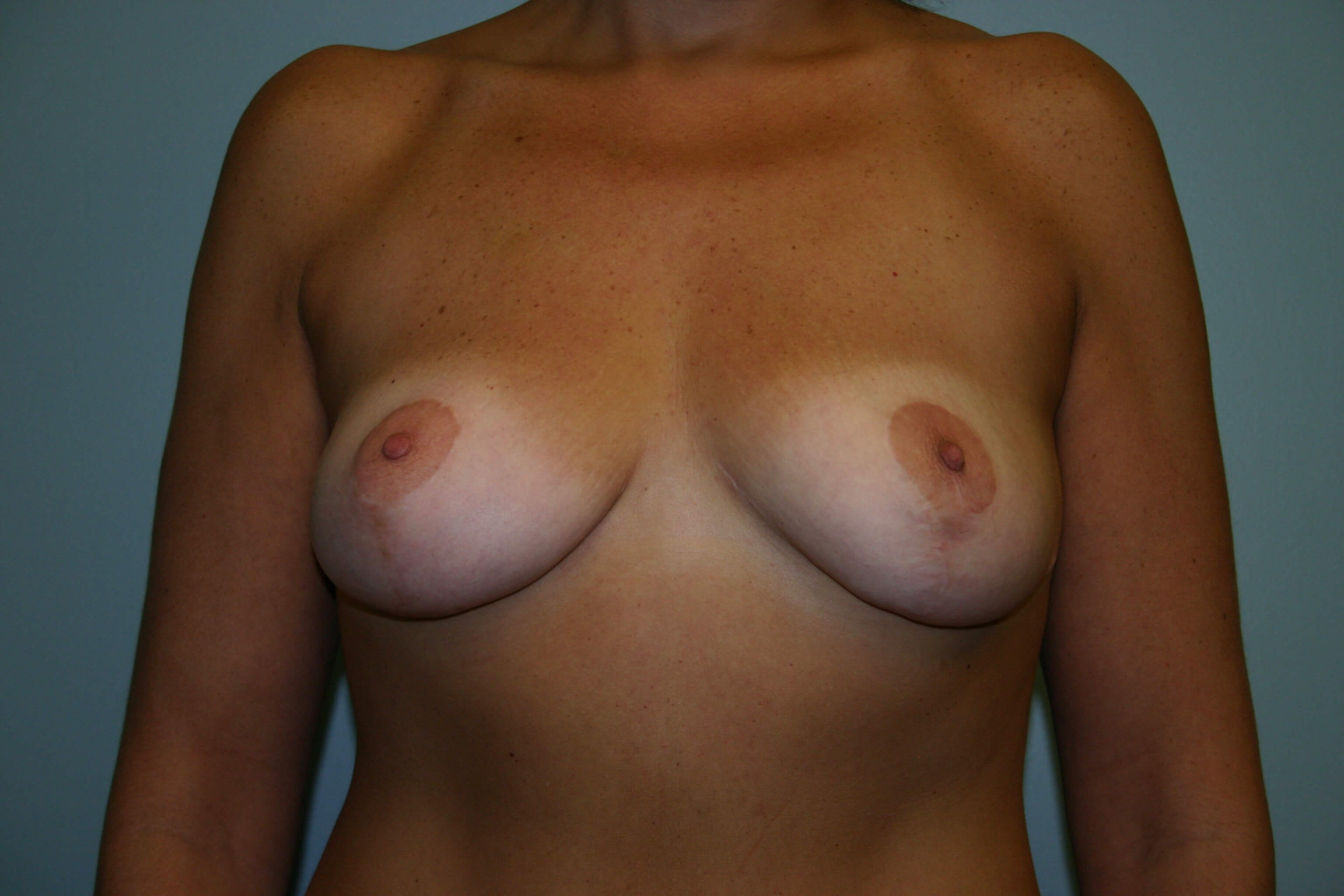 2 Years Post-op Breast Lift After