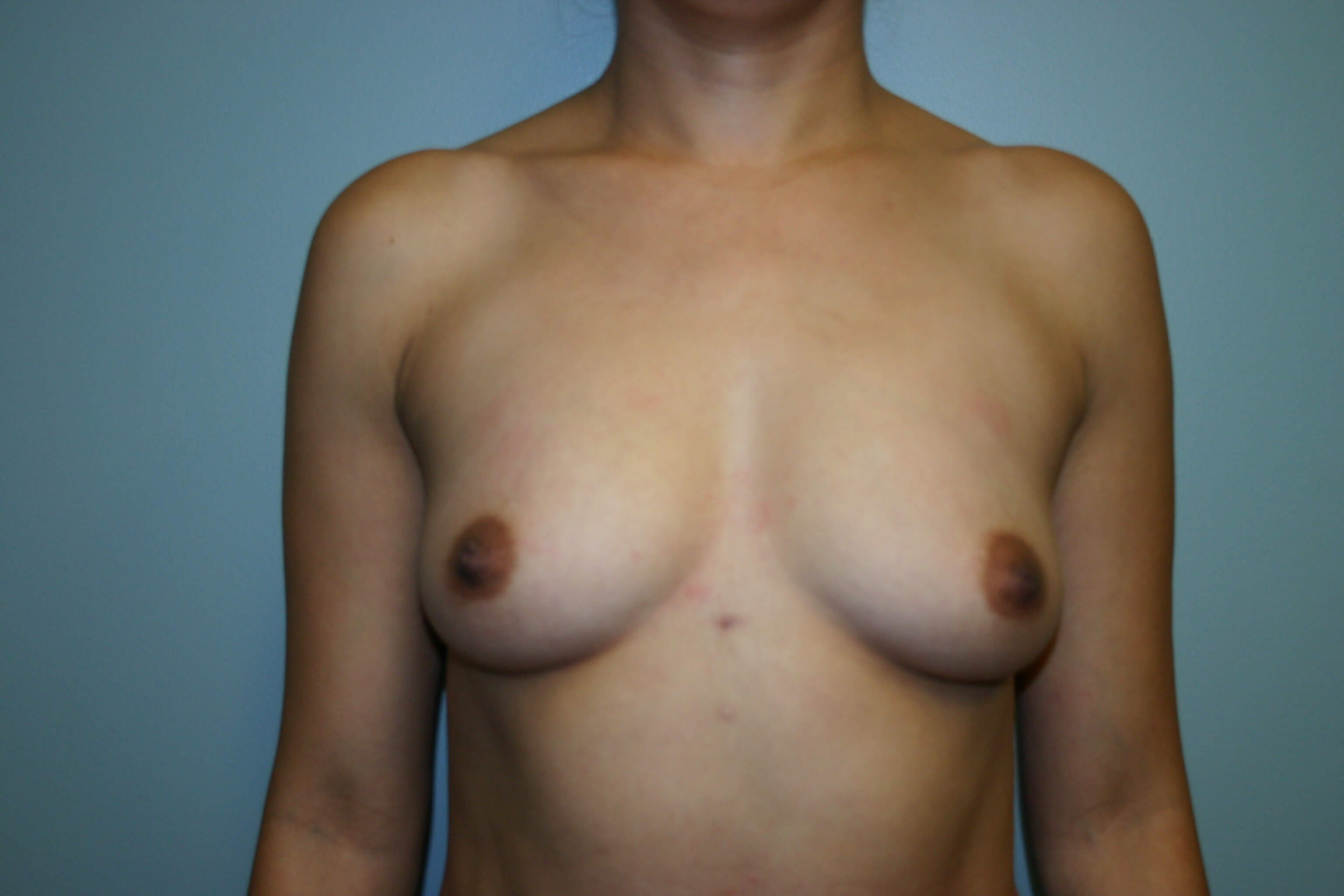 3 Months Post-op Breast Aug Before