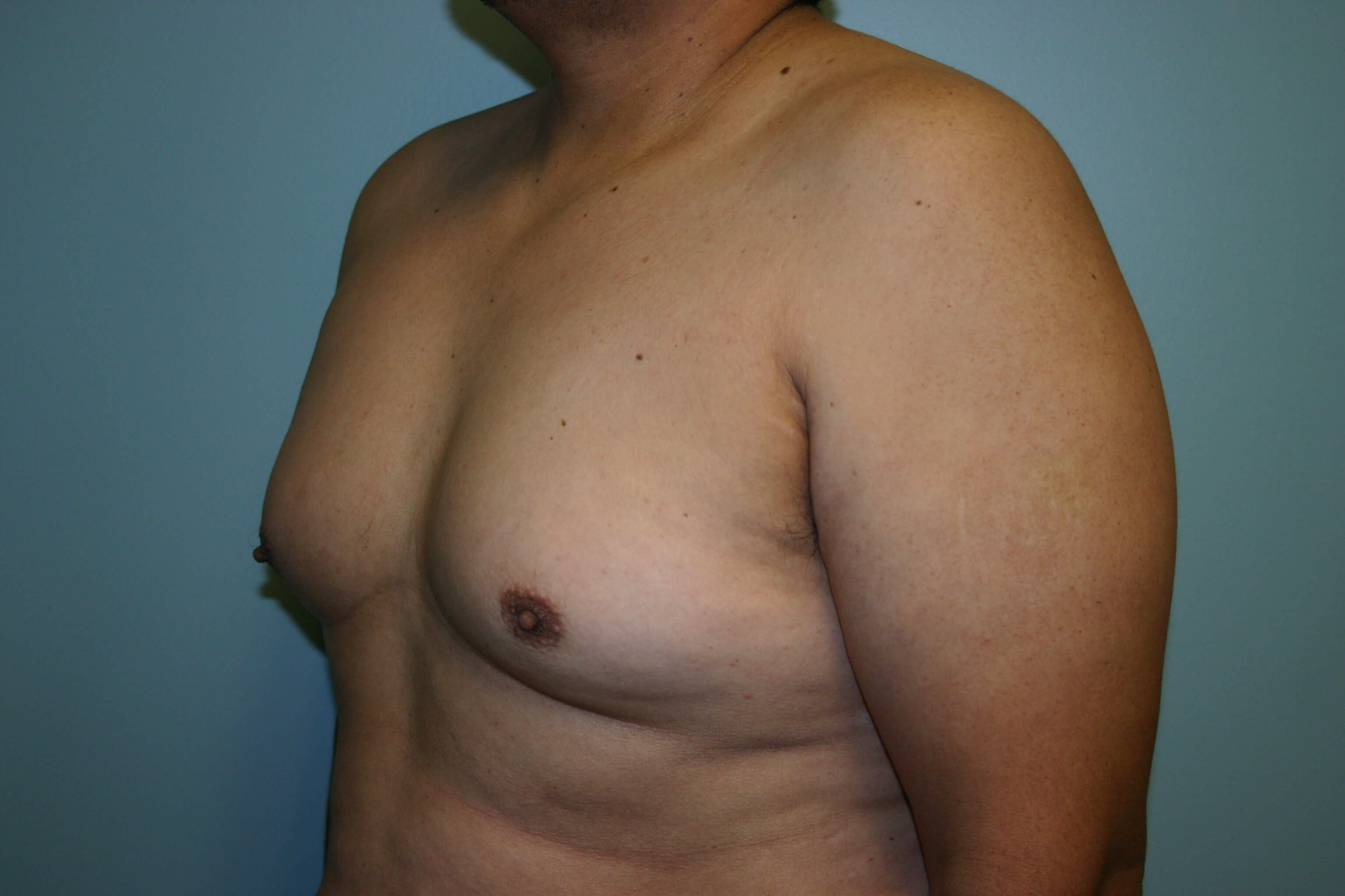 6 Month Post-op Male Reduction Before
