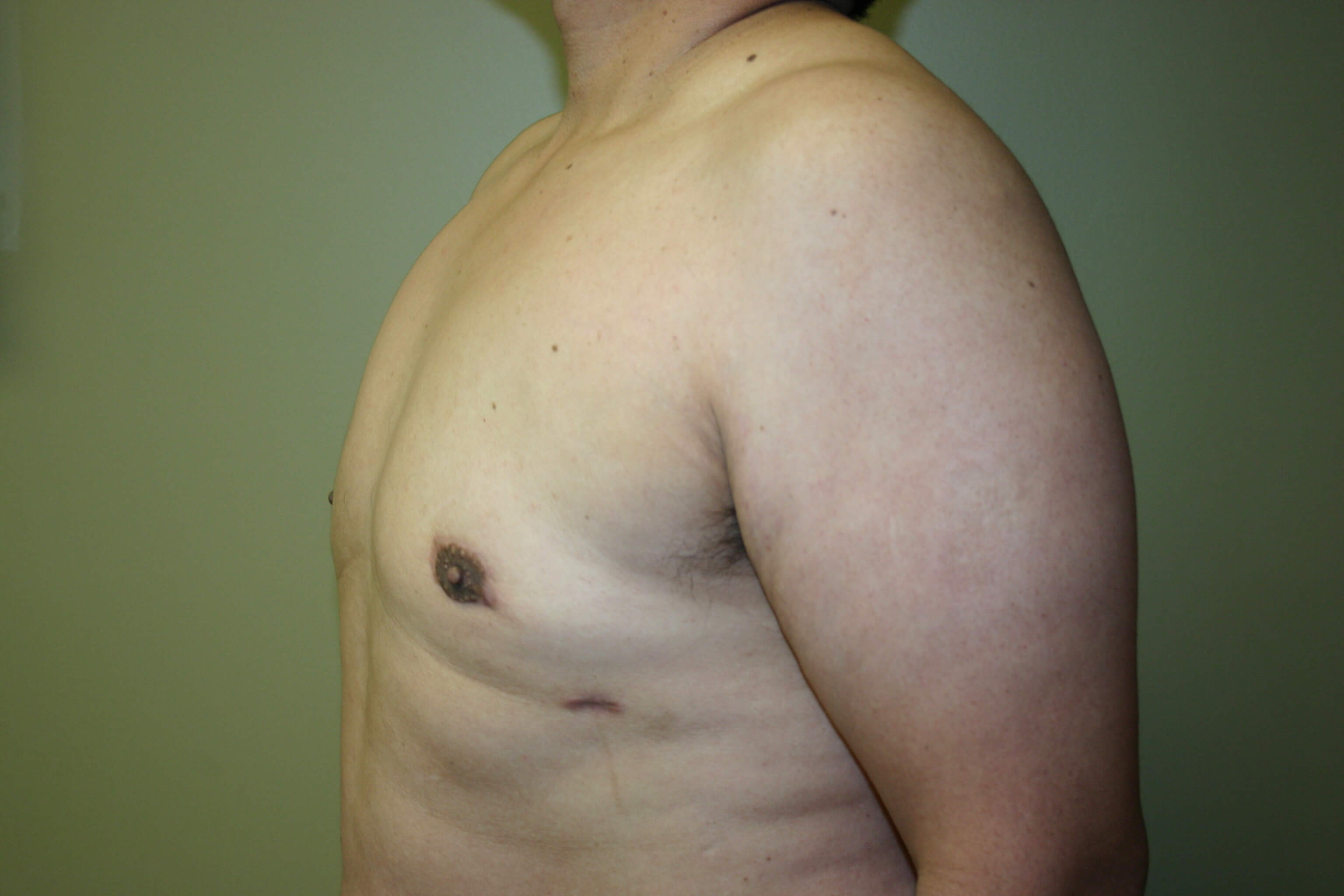 6 Month Post-op Male Reduction After