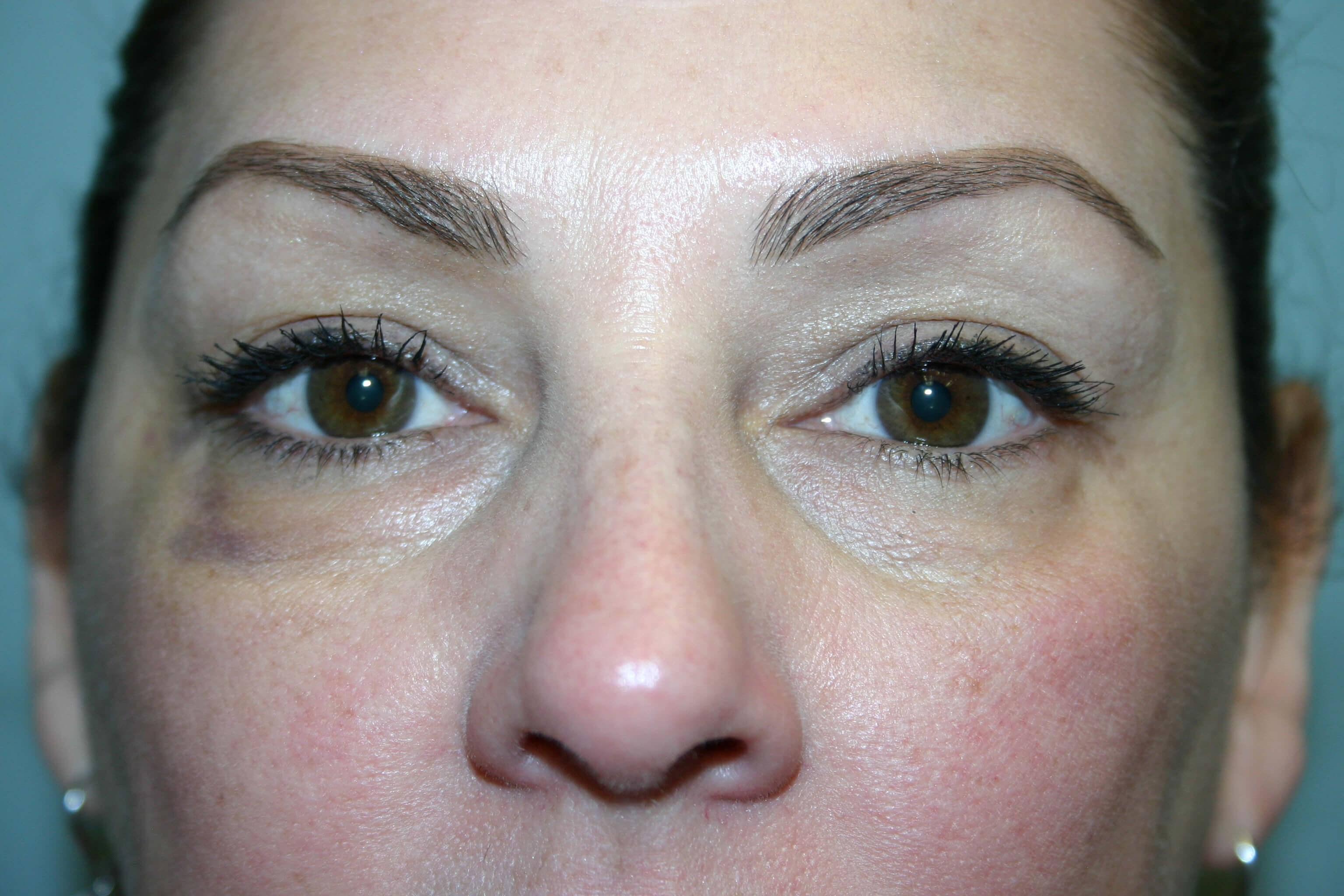 6 Month Post-op Eyelid Surgery Before