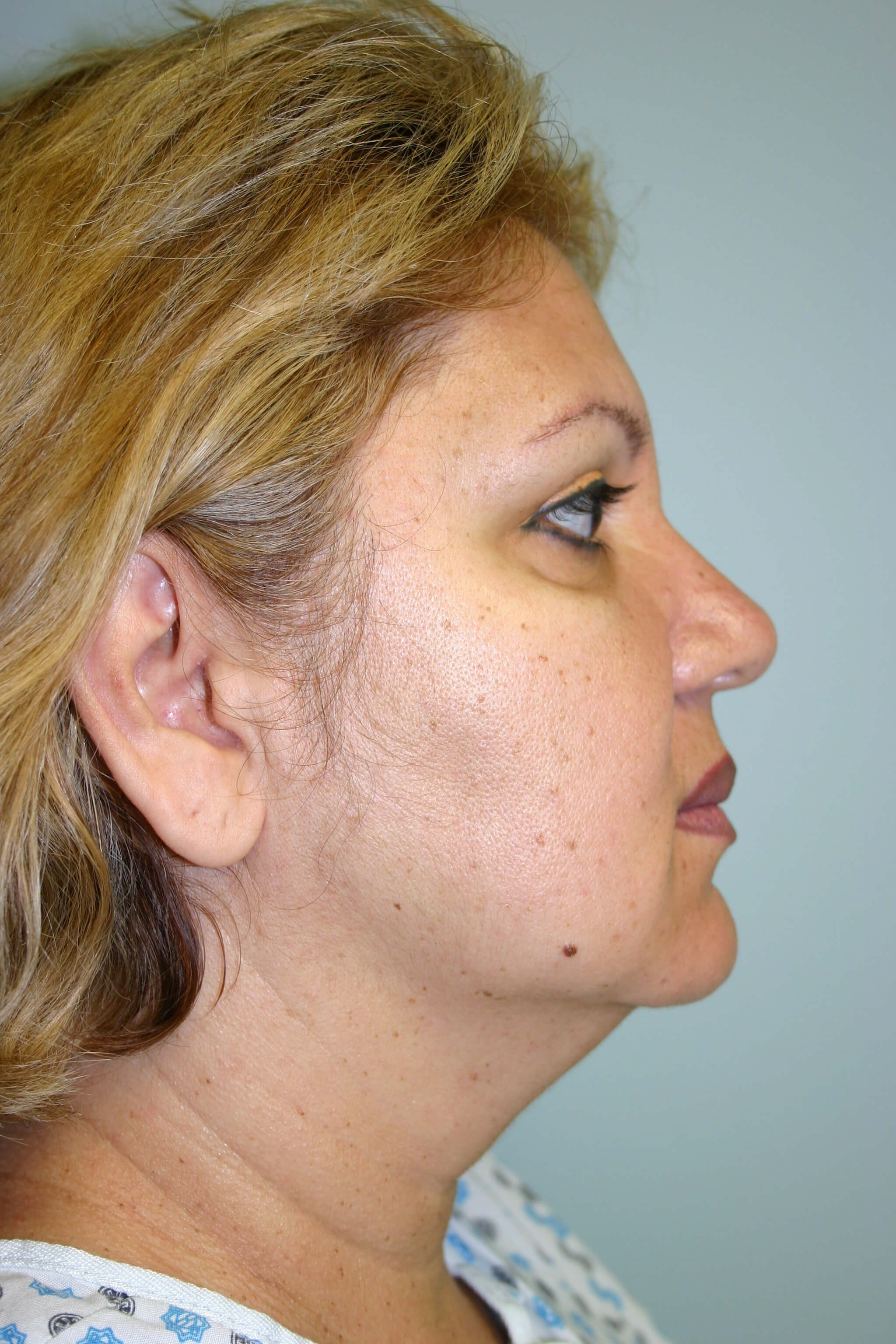 3 Months Post-op Facelift Before