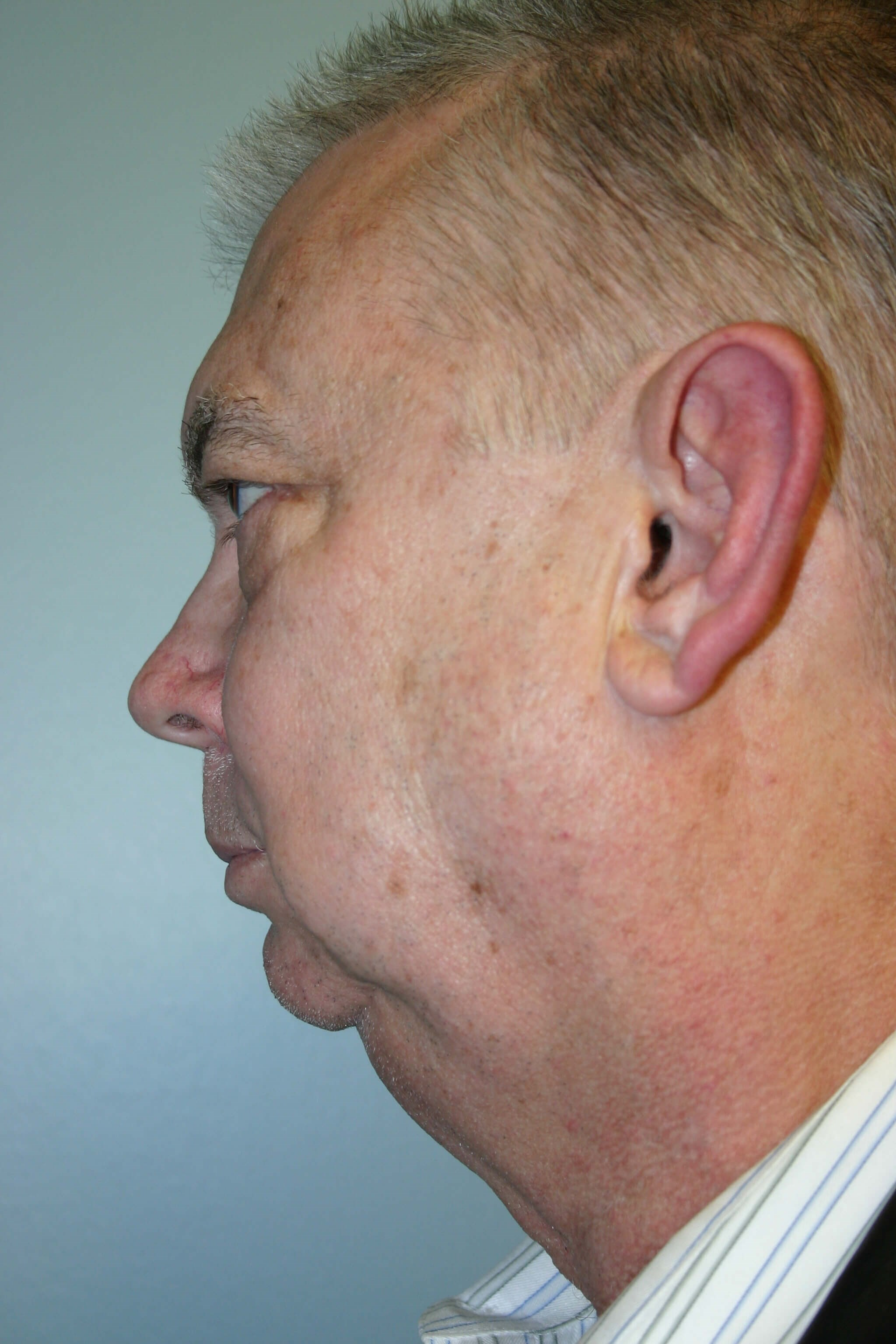 9 Months Post-op Facelift Before