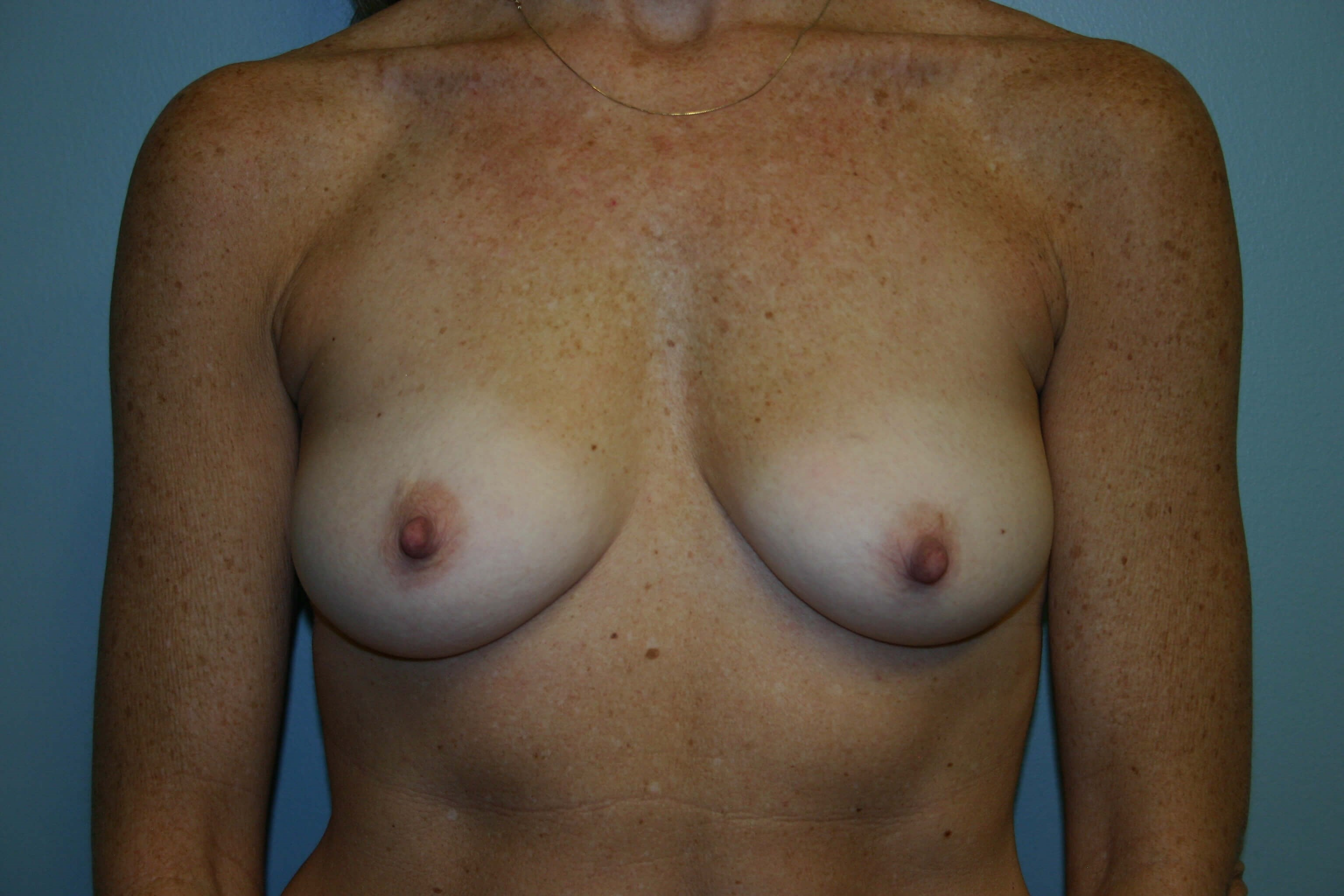 3 Years Post-Op Breast Aug Before
