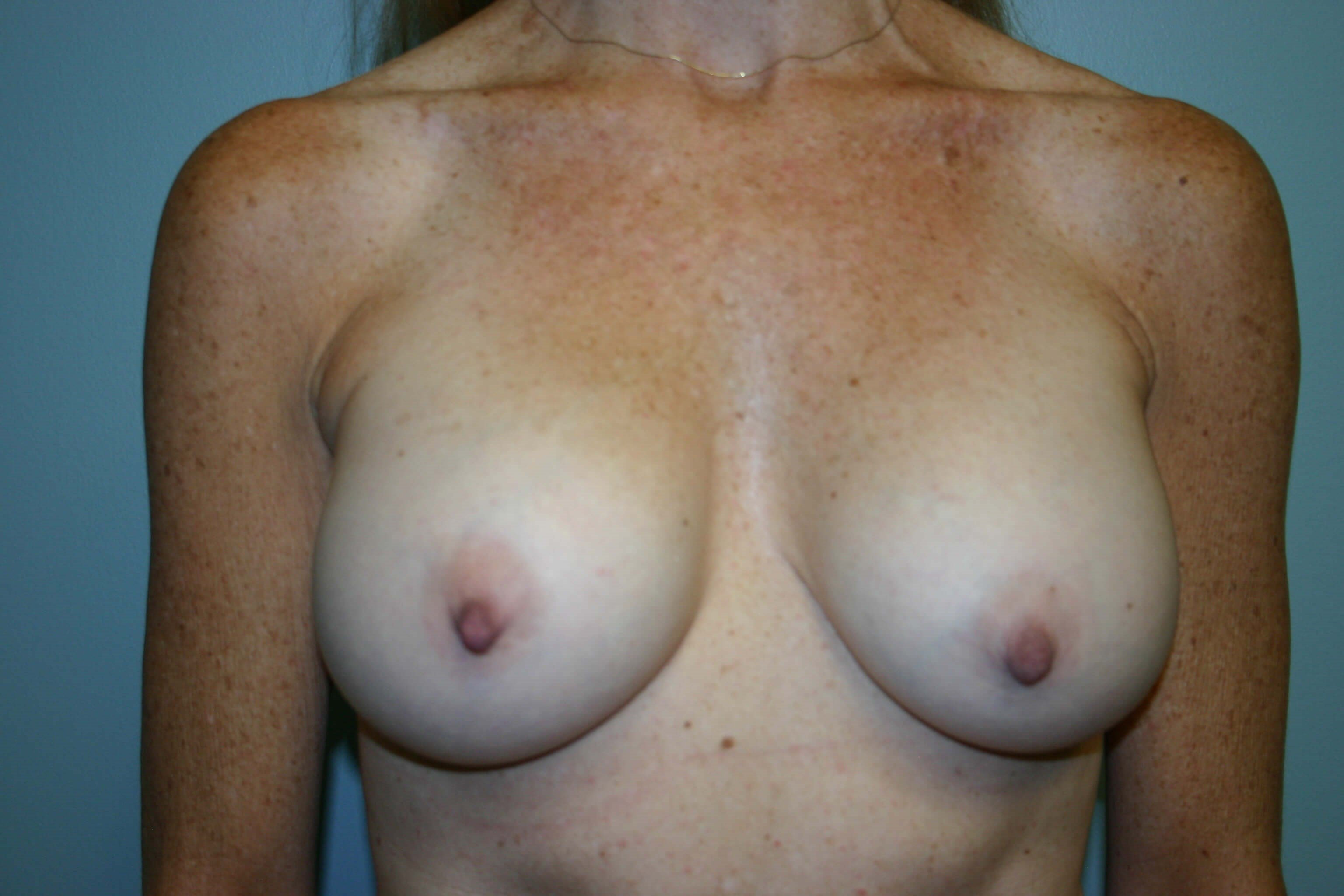 3 Years Post-Op Breast Aug After