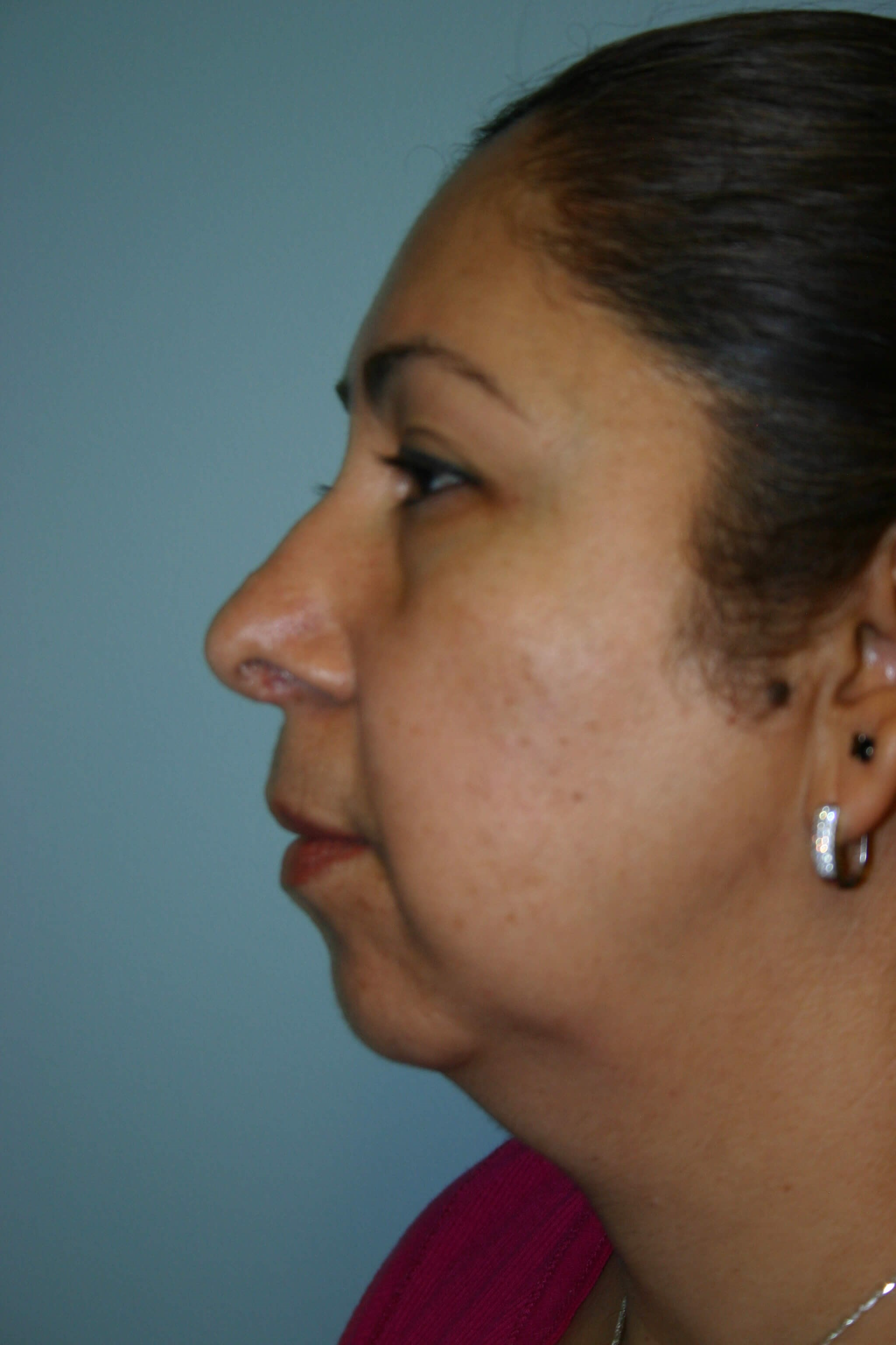 6 Months Post-op Rhinoplasty After