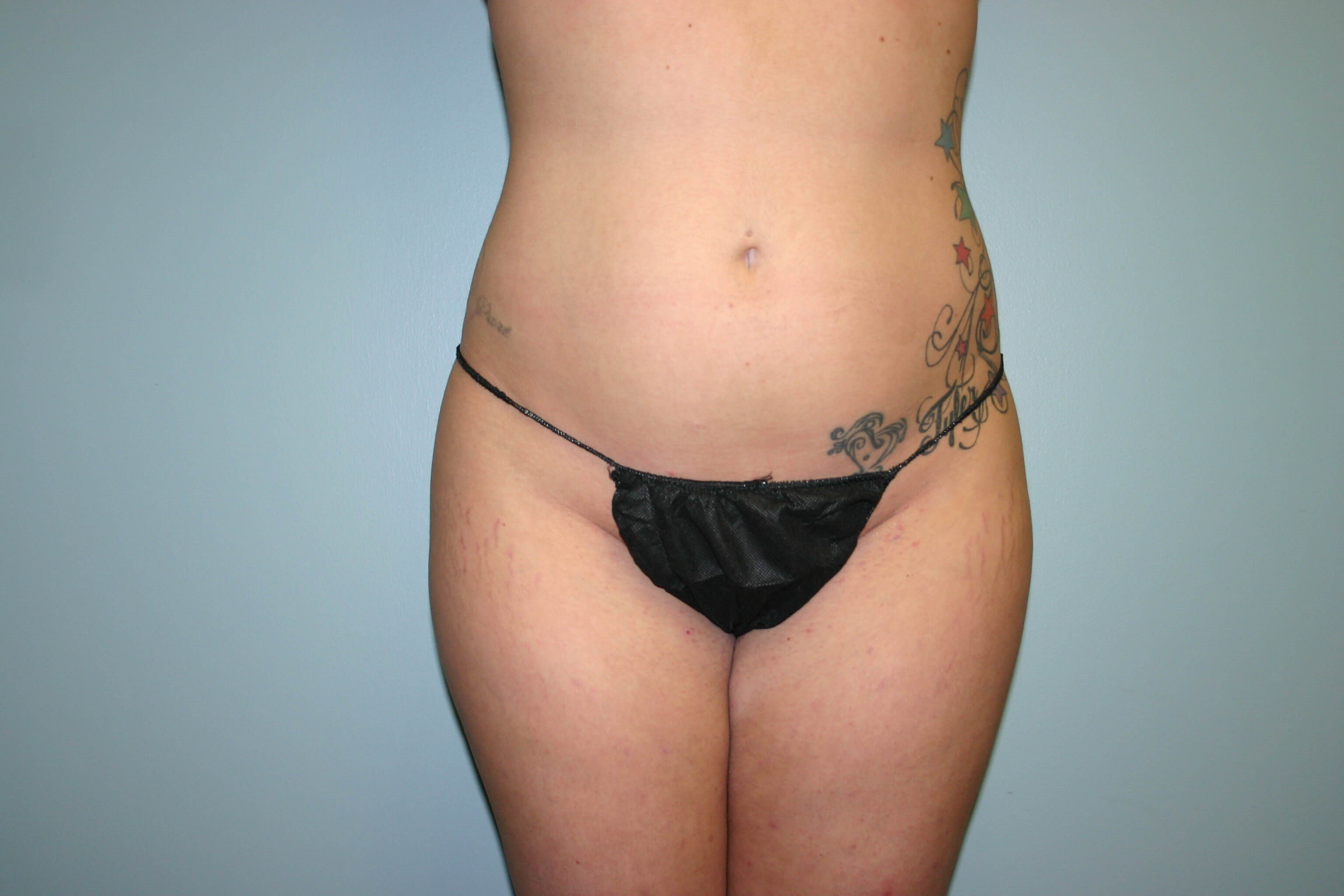 2 Months Post-op Liposuction Before
