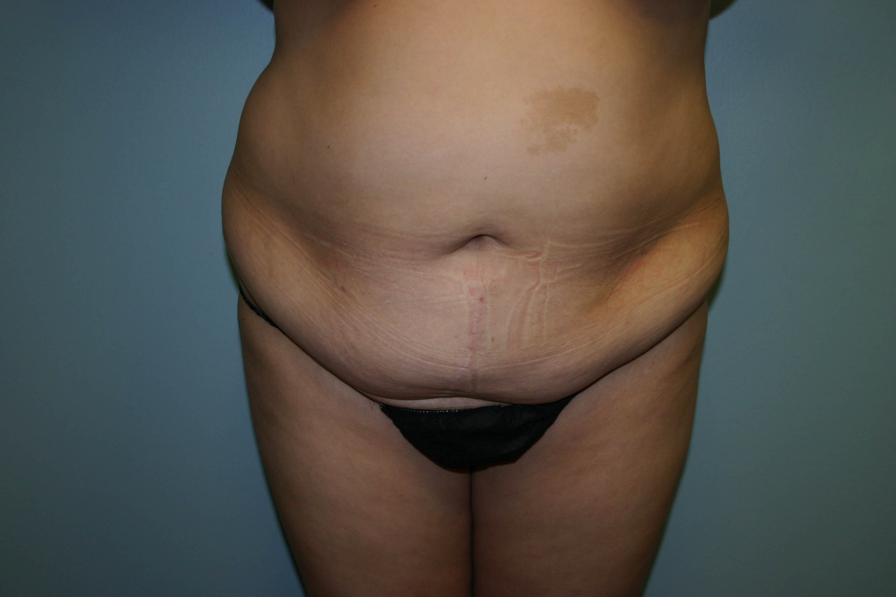 3 Months Post-op Tummy Tuck Before