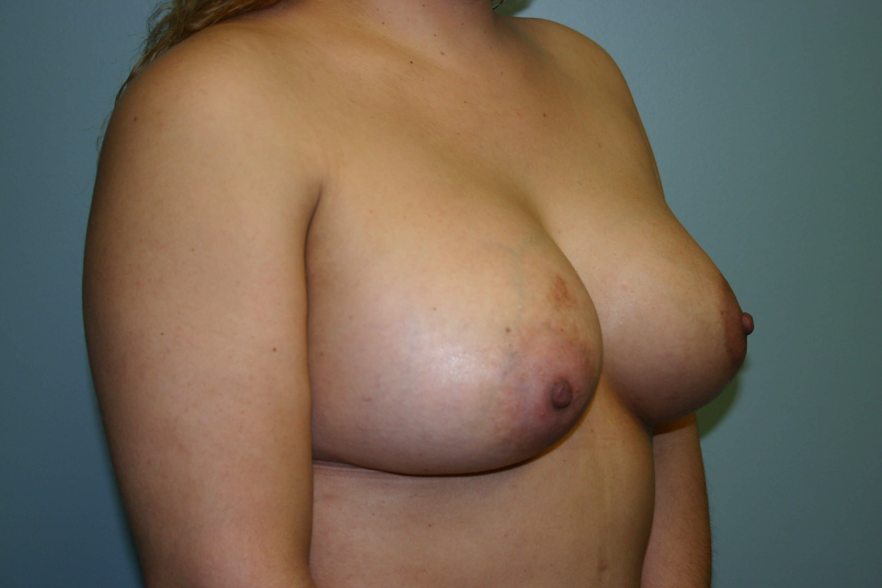 3 Months post-op Breast Aug After
