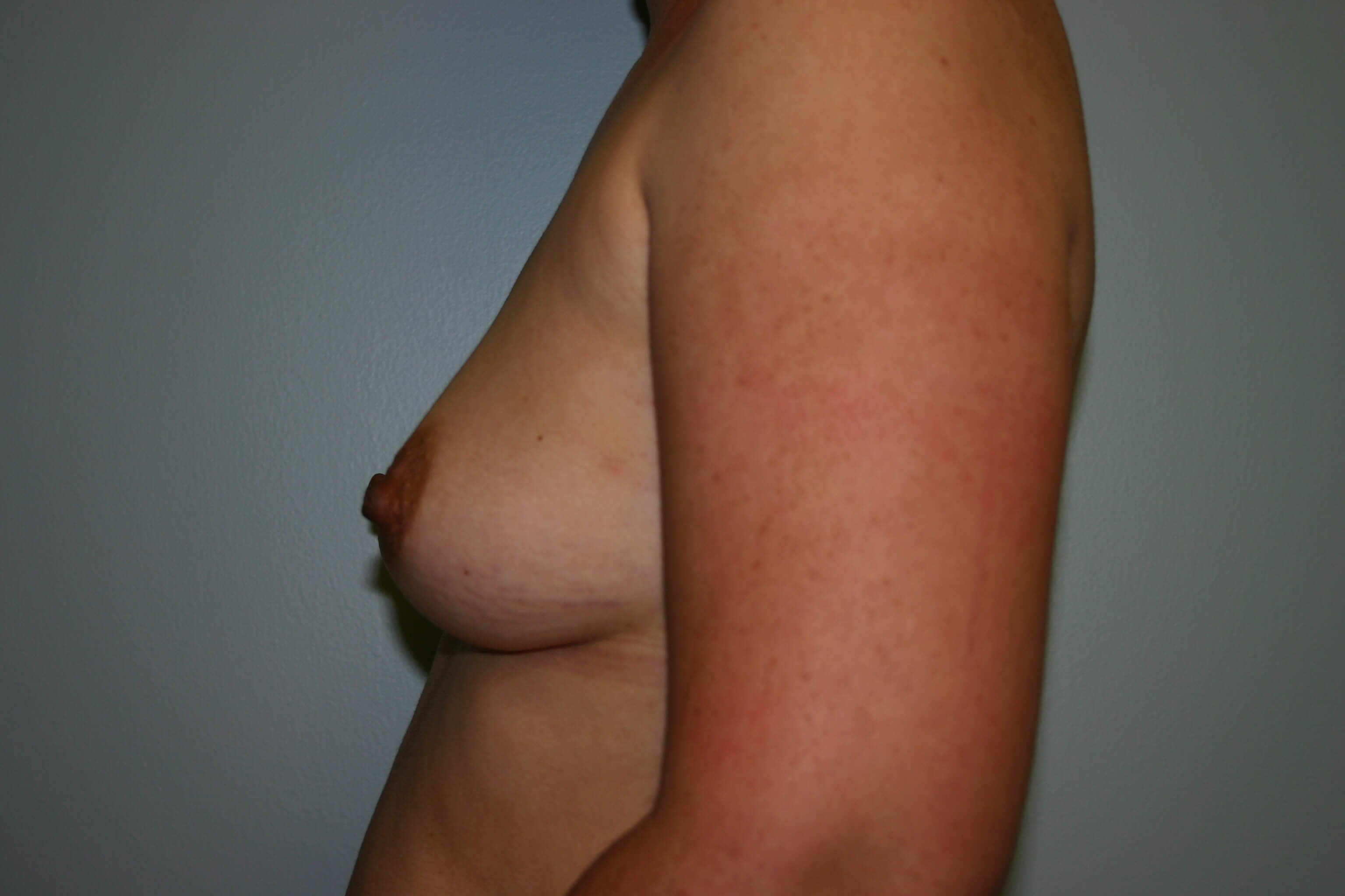 6 Months Post-Op Breast Aug Before